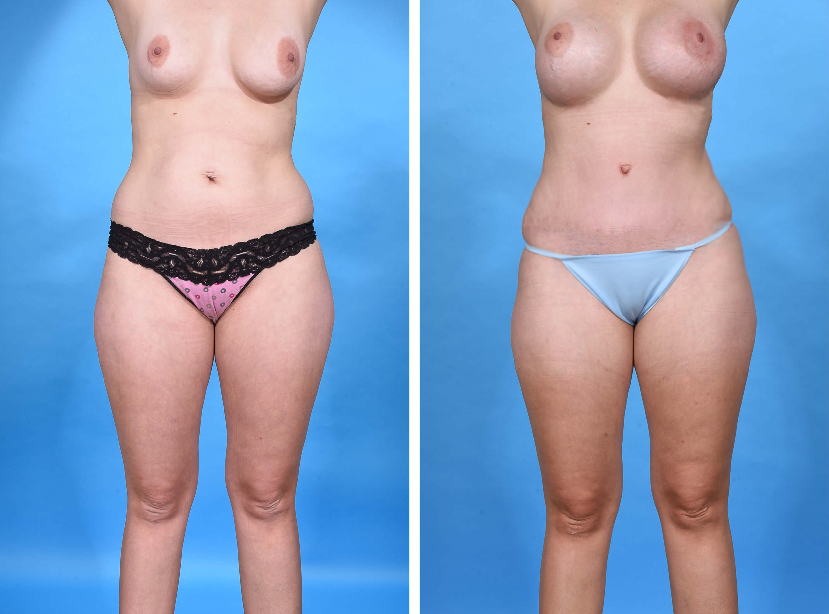 MOMMY MAKOVER TUMMY TUCK Before
