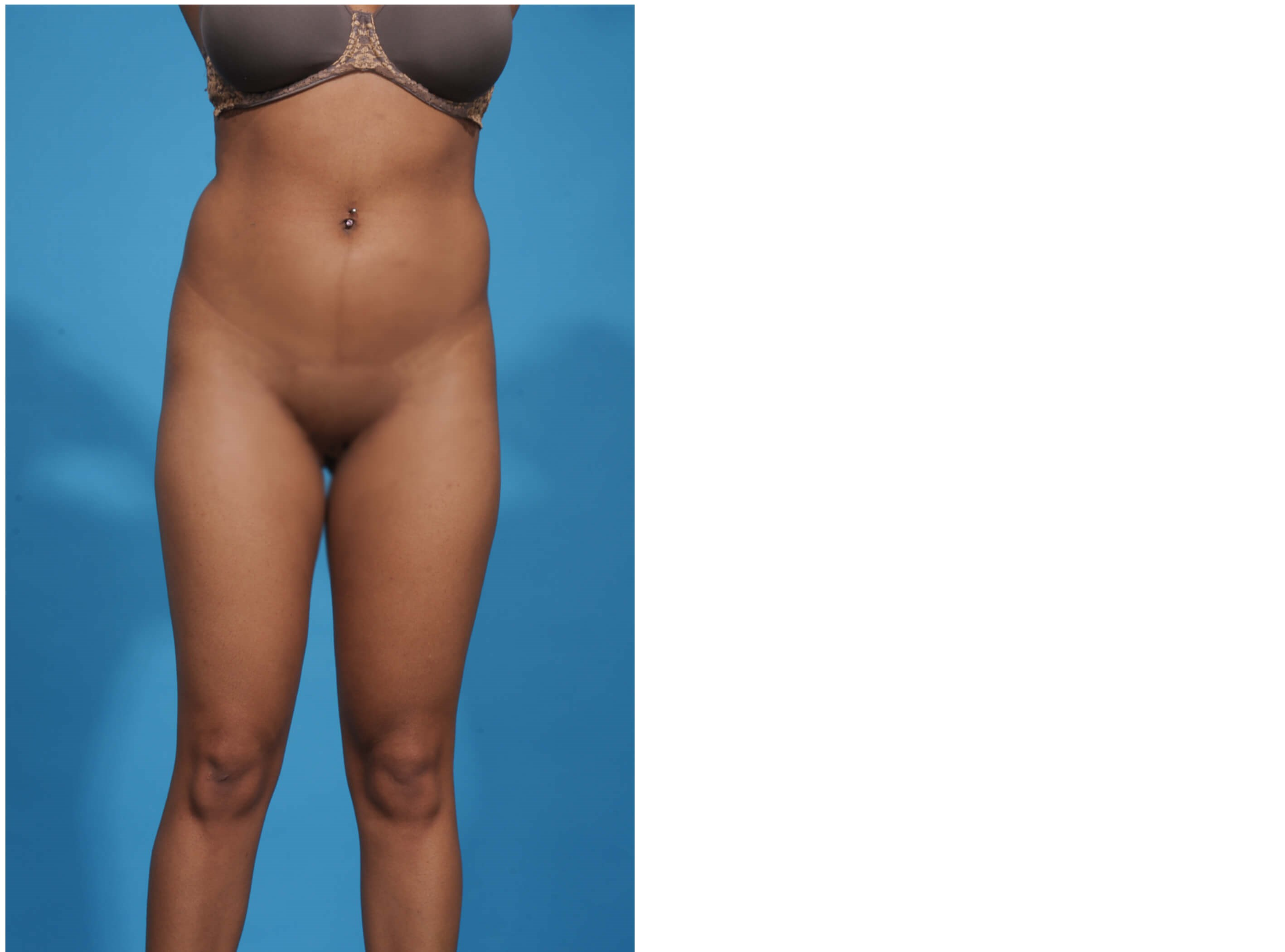 LIPOSUCTION CIRCUMFERENTIAL Before