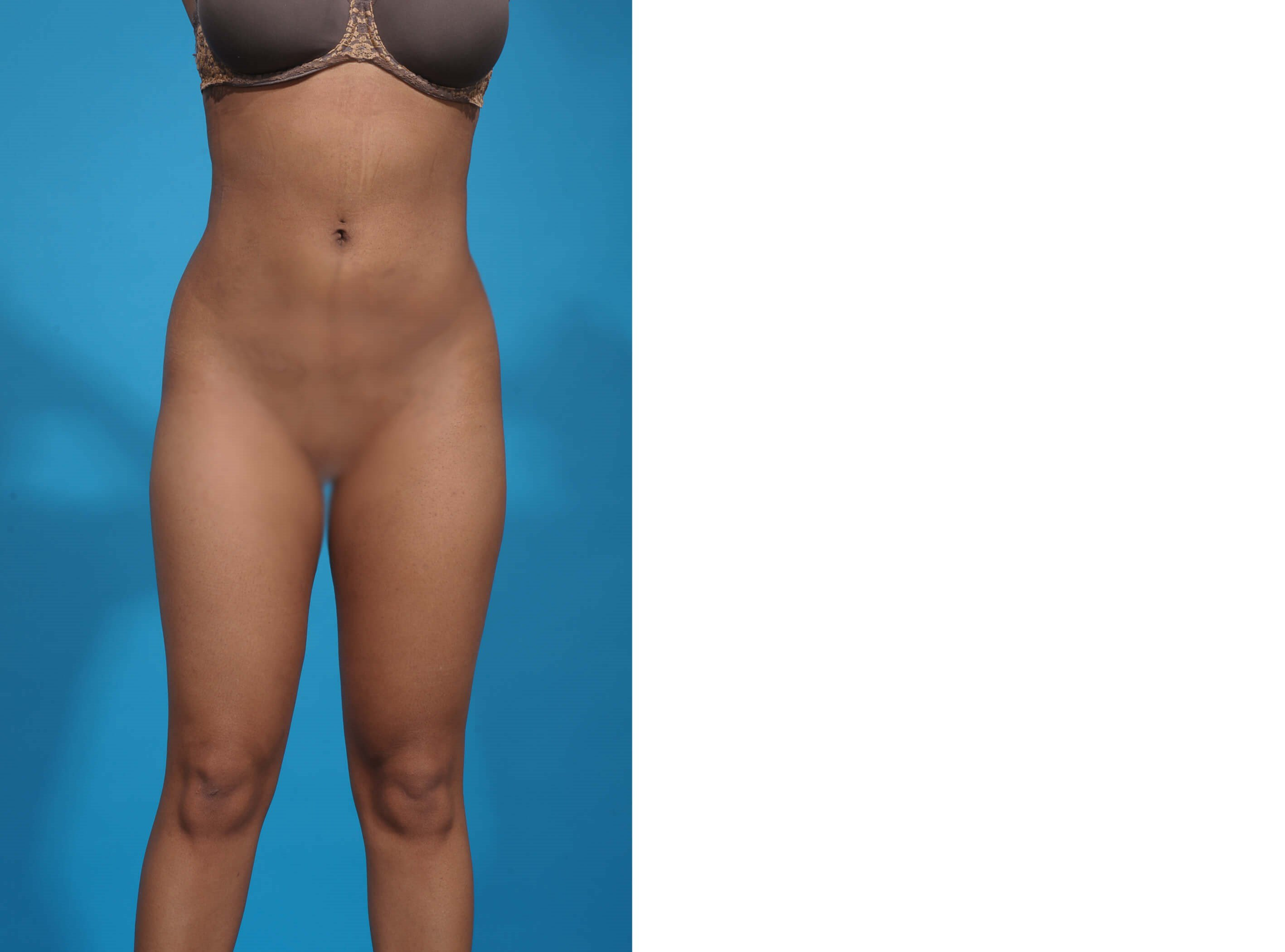 LIPOSUCTION CIRCUMFERENTIAL After
