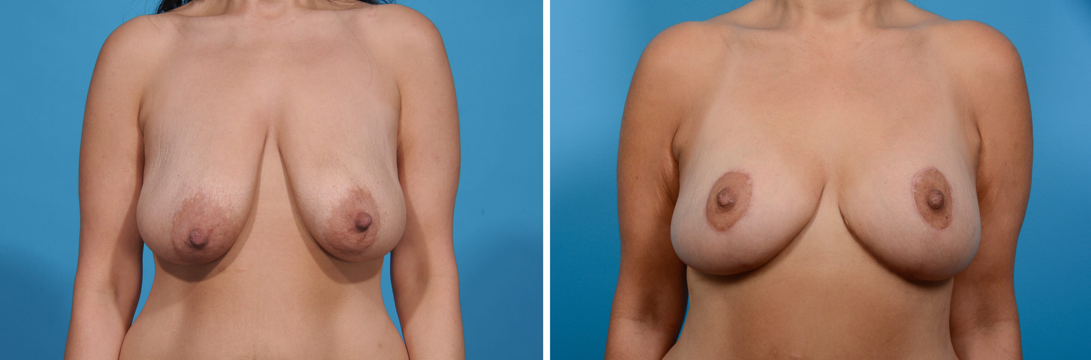 BREAST LIFT/TUMMY TUCK Before