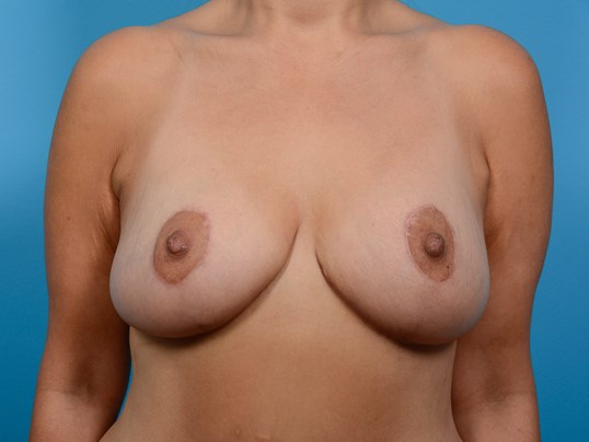 BREAST LIFT/TUMMY TUCK After