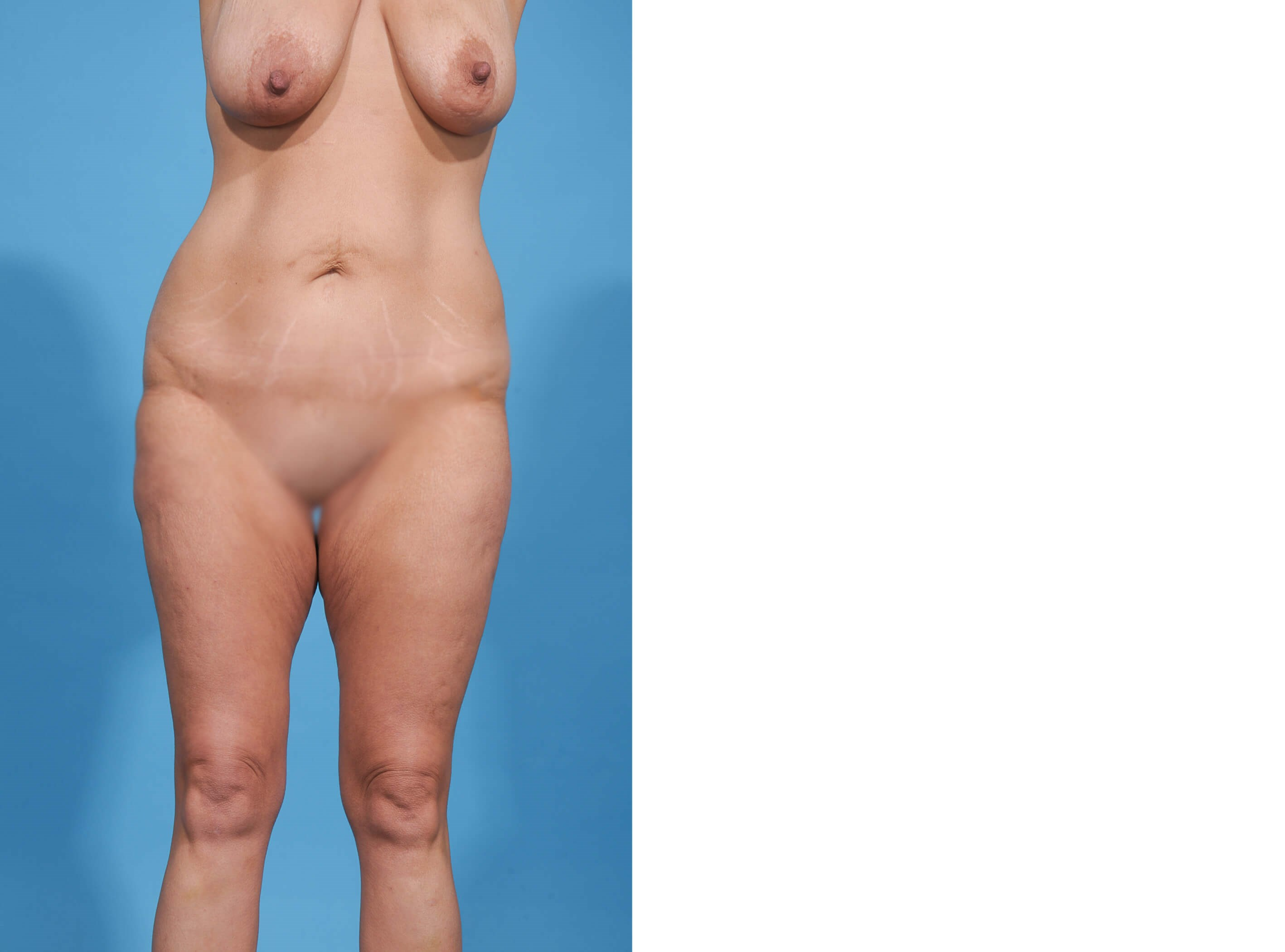 BREAST LIFT/TUMMY TUCK FRONT Before