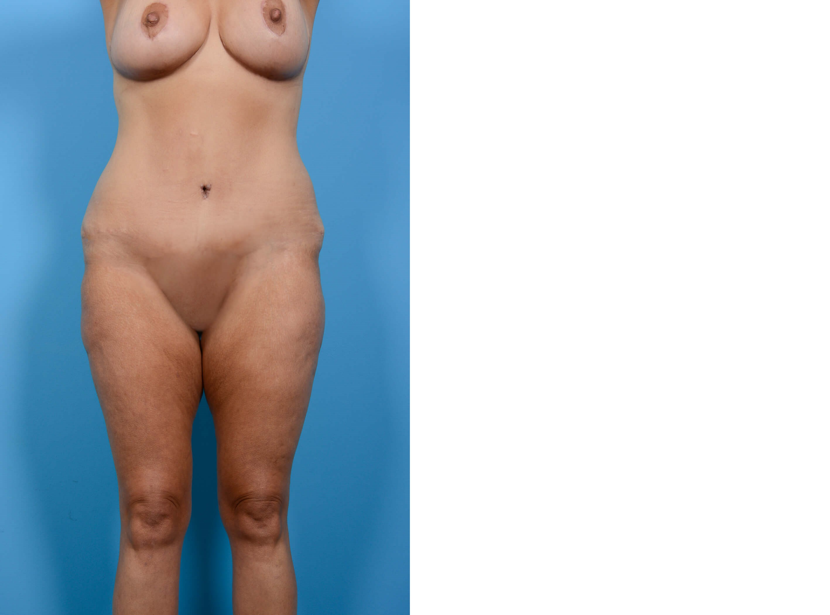 BREAST LIFT/TUMMY TUCK FRONT After