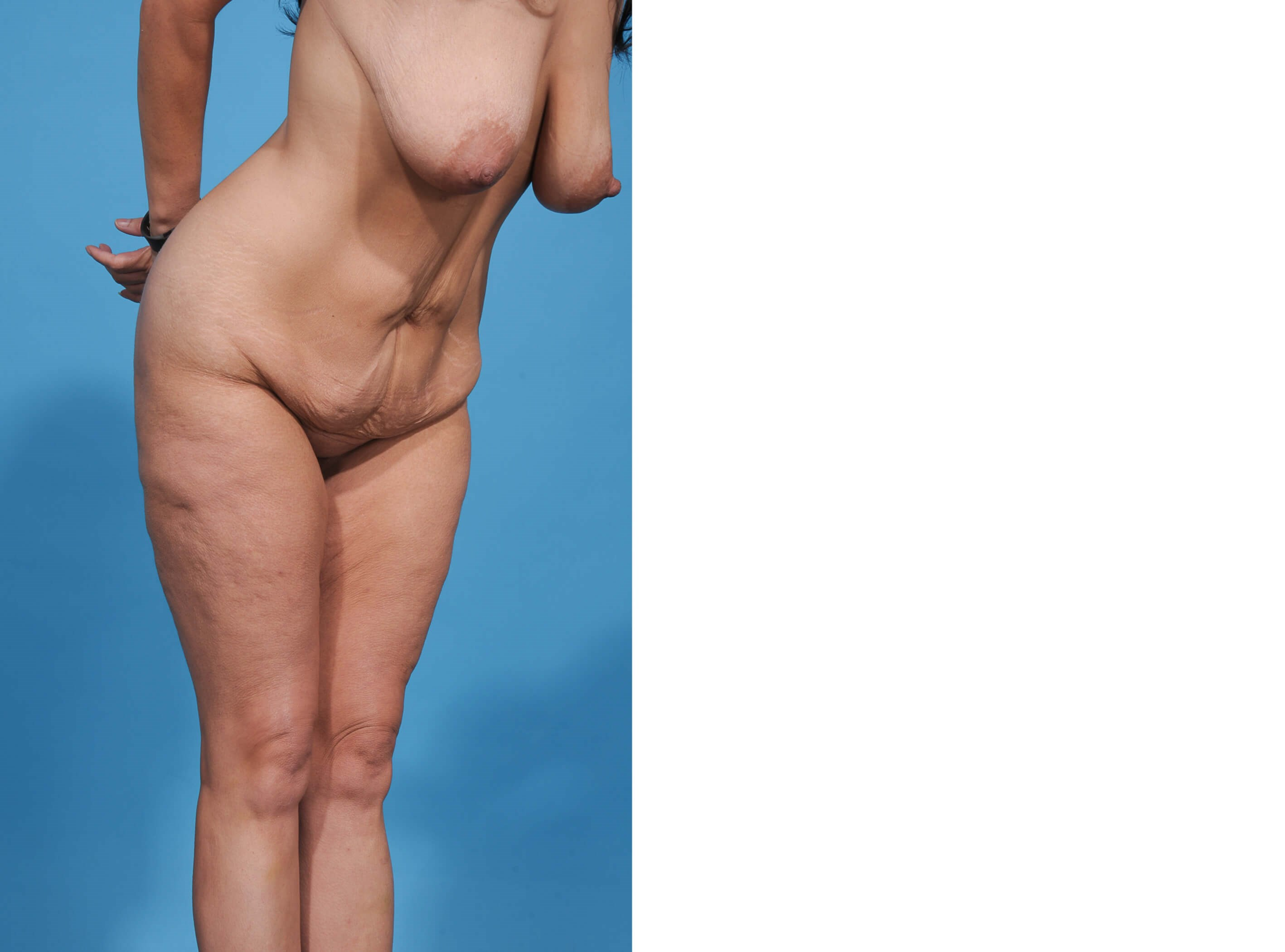 BREAST LIFT/TUMMY TUCK PROFILE Before