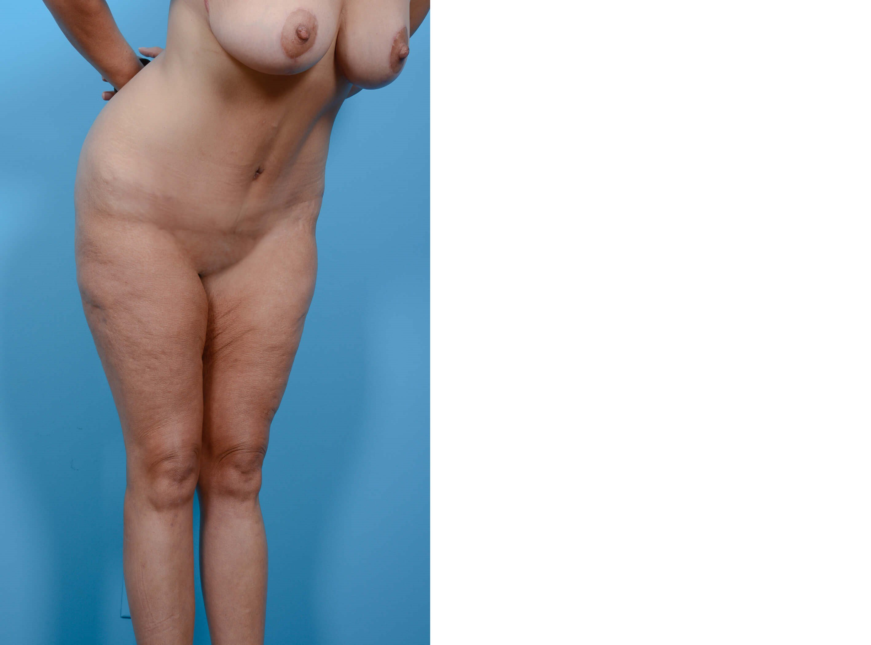 BREAST LIFT/TUMMY TUCK PROFILE After