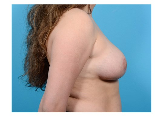 BREAST REDUCTION R PROFILE After