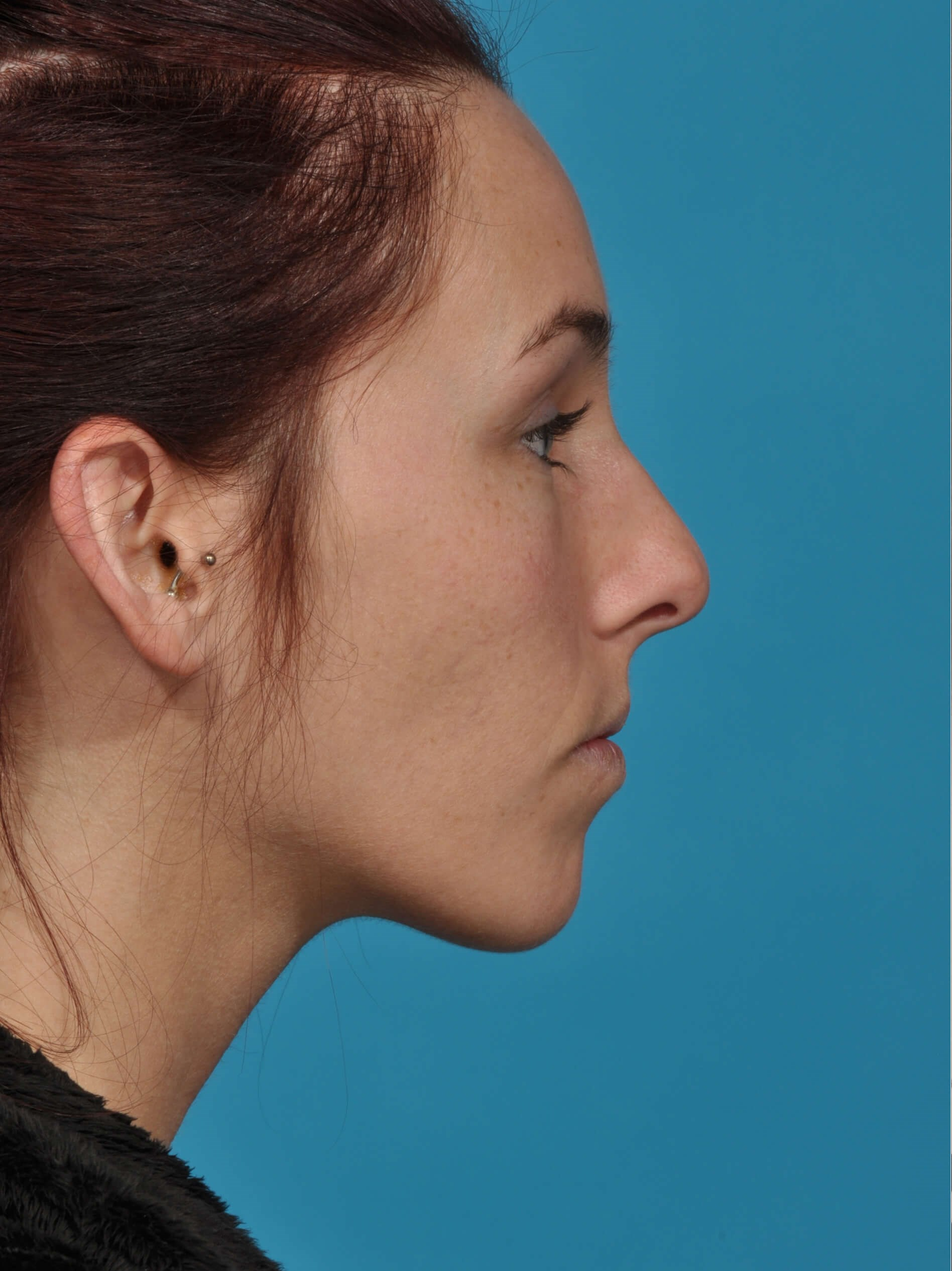 RHINOPLASTY R PROFILE Before