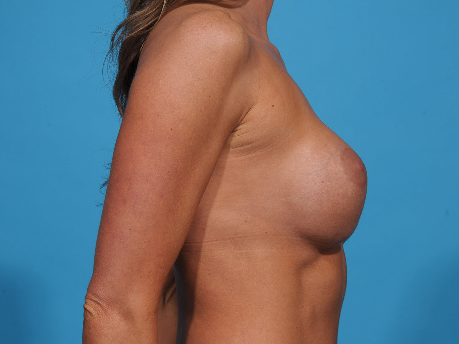 BREAST IMPLANT EXCHANGE R Before