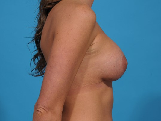 BREAST IMPLANT EXCHANGE R After