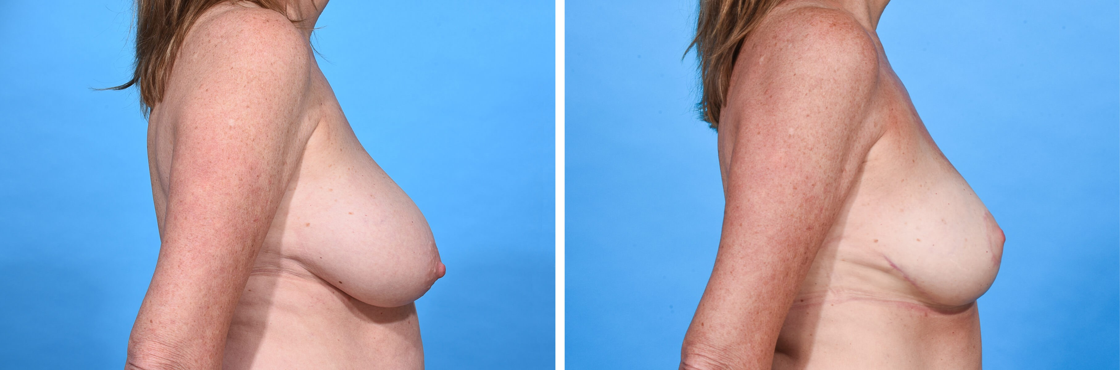 BREAST LIFT R PROFILE Before