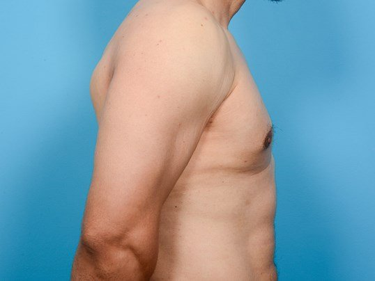 GYNECOMASTIA R PROFILE After