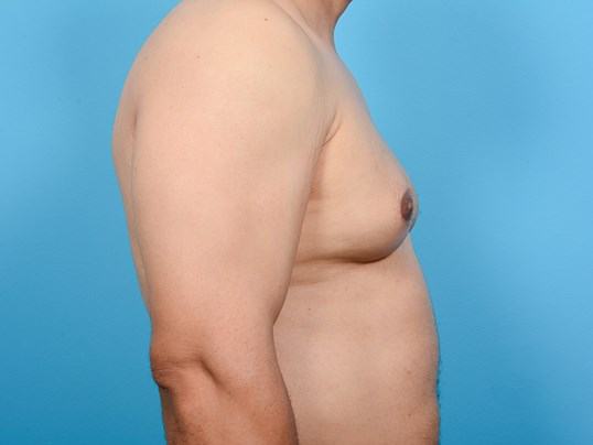 GYNECOMASTIA R PROFILE Before