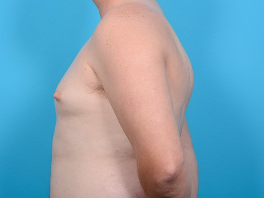 GYNECOMASTIA L PROFILE Before