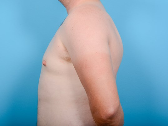 GYNECOMASTIA L PROFILE After