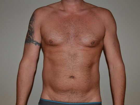 VASER Hi Def Liposuction Before
