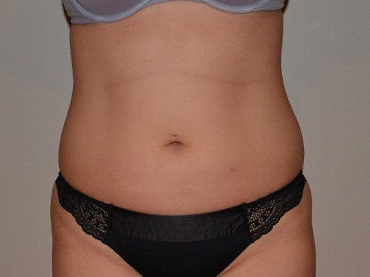 VASER Hi Def Liposuction Before, frontal view