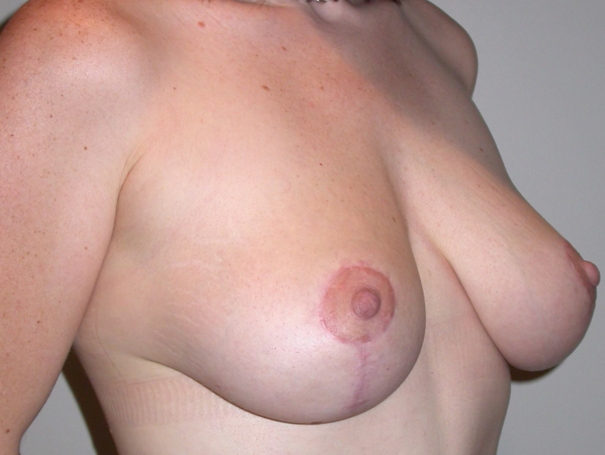 Breast Lift After