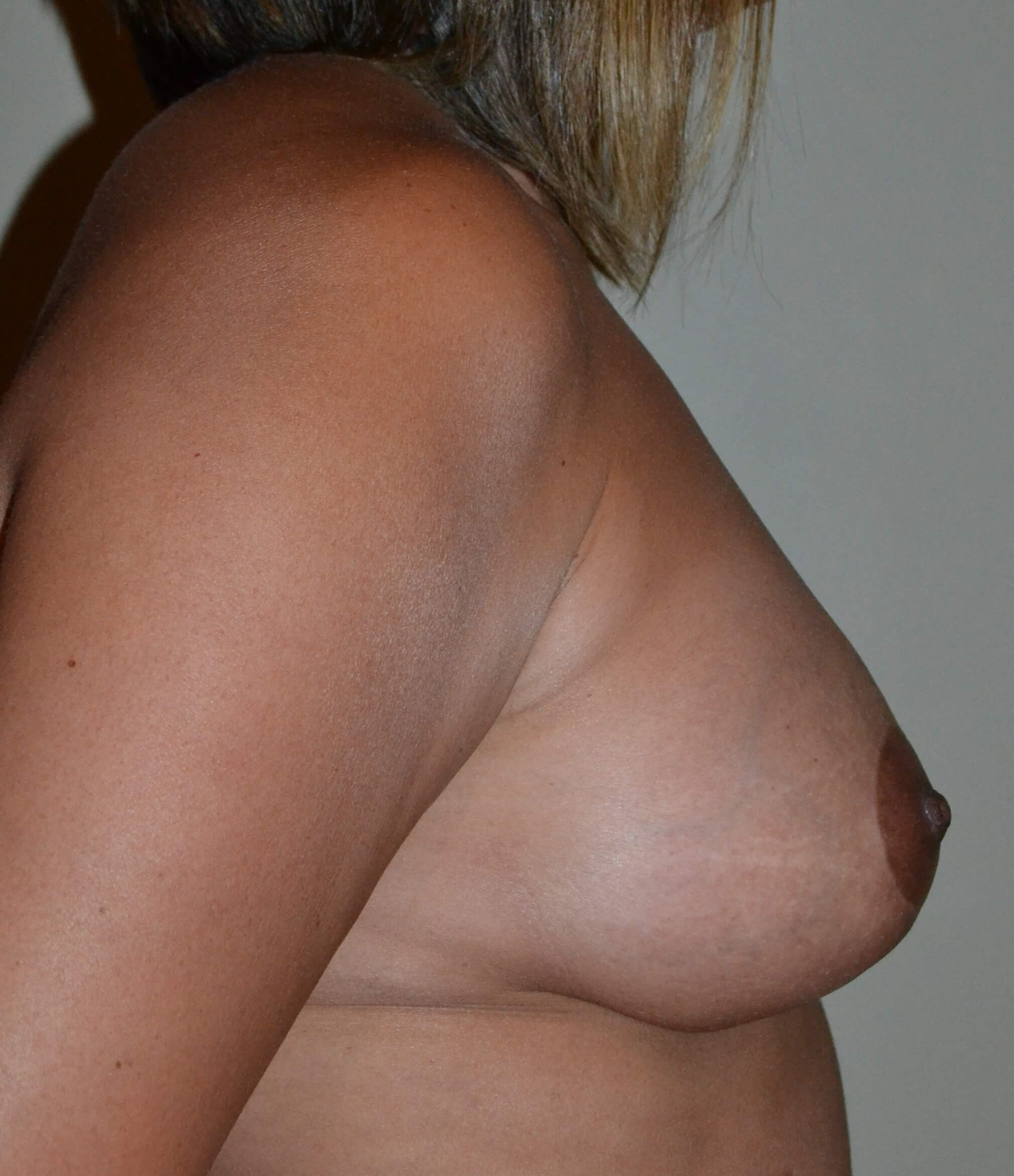 Breast Lift/Augmentation After