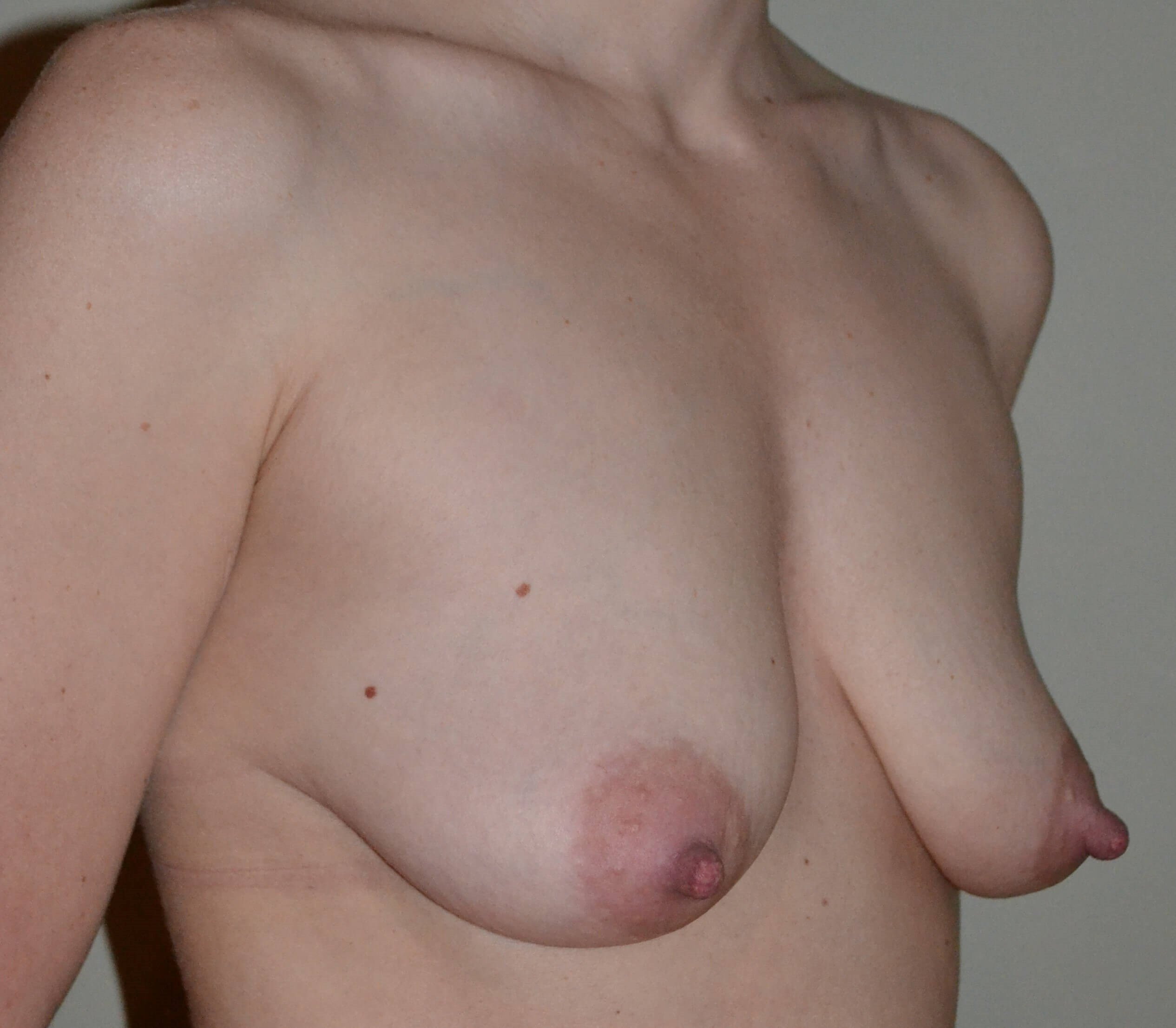 Breast Lift/Augmentation Before