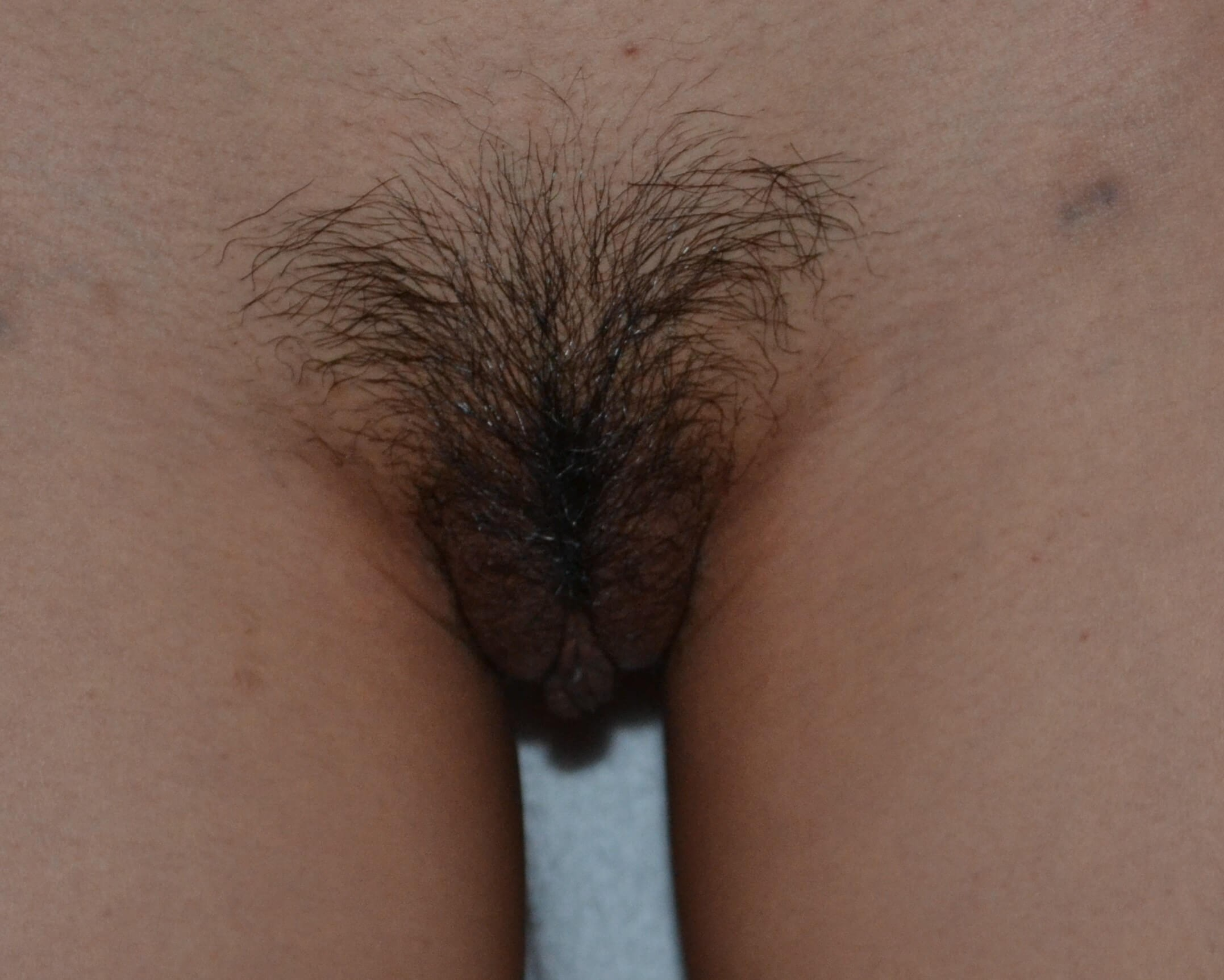 Labiaplasty Before
