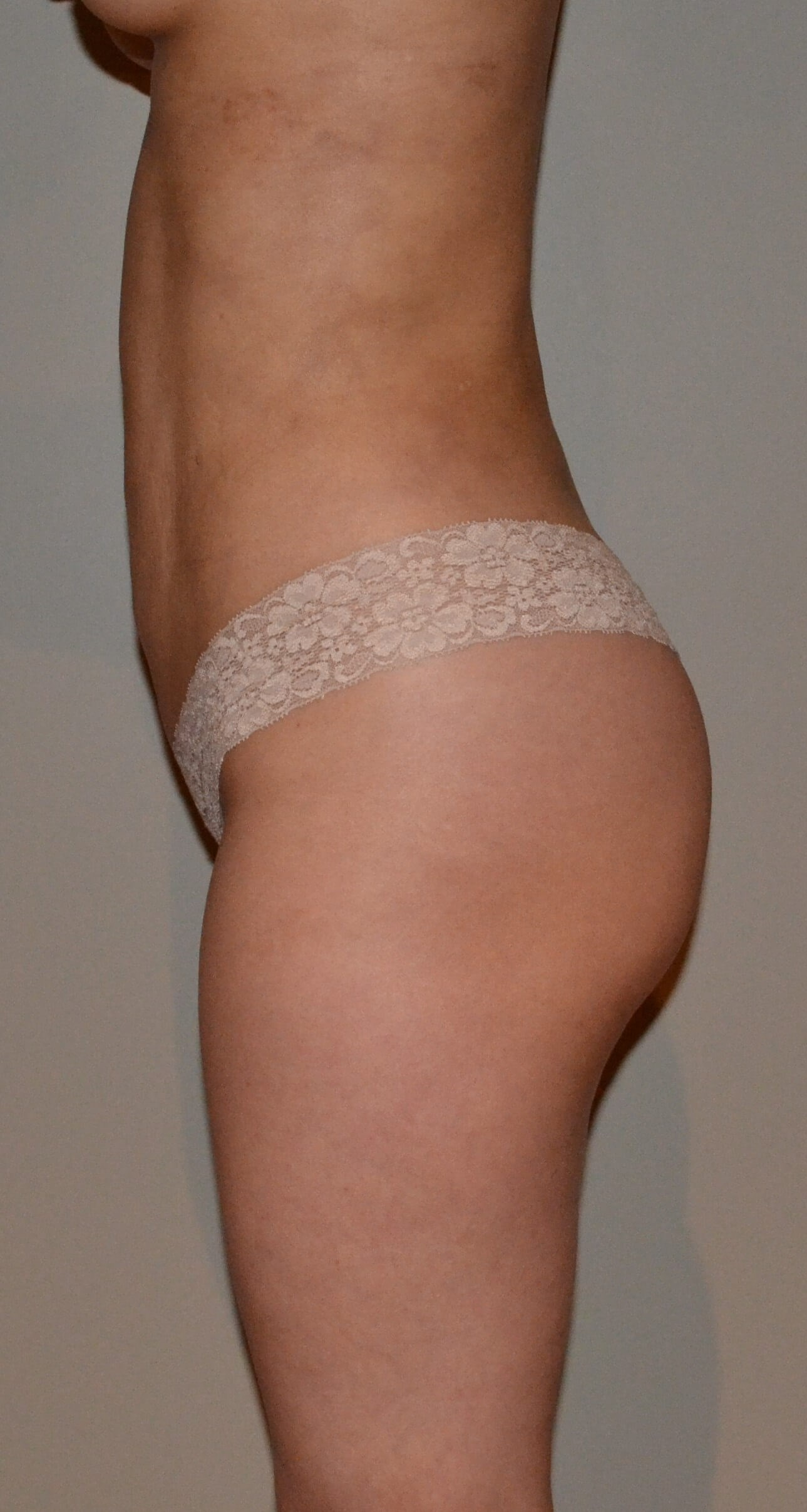 Brazilian Buttock Lift After