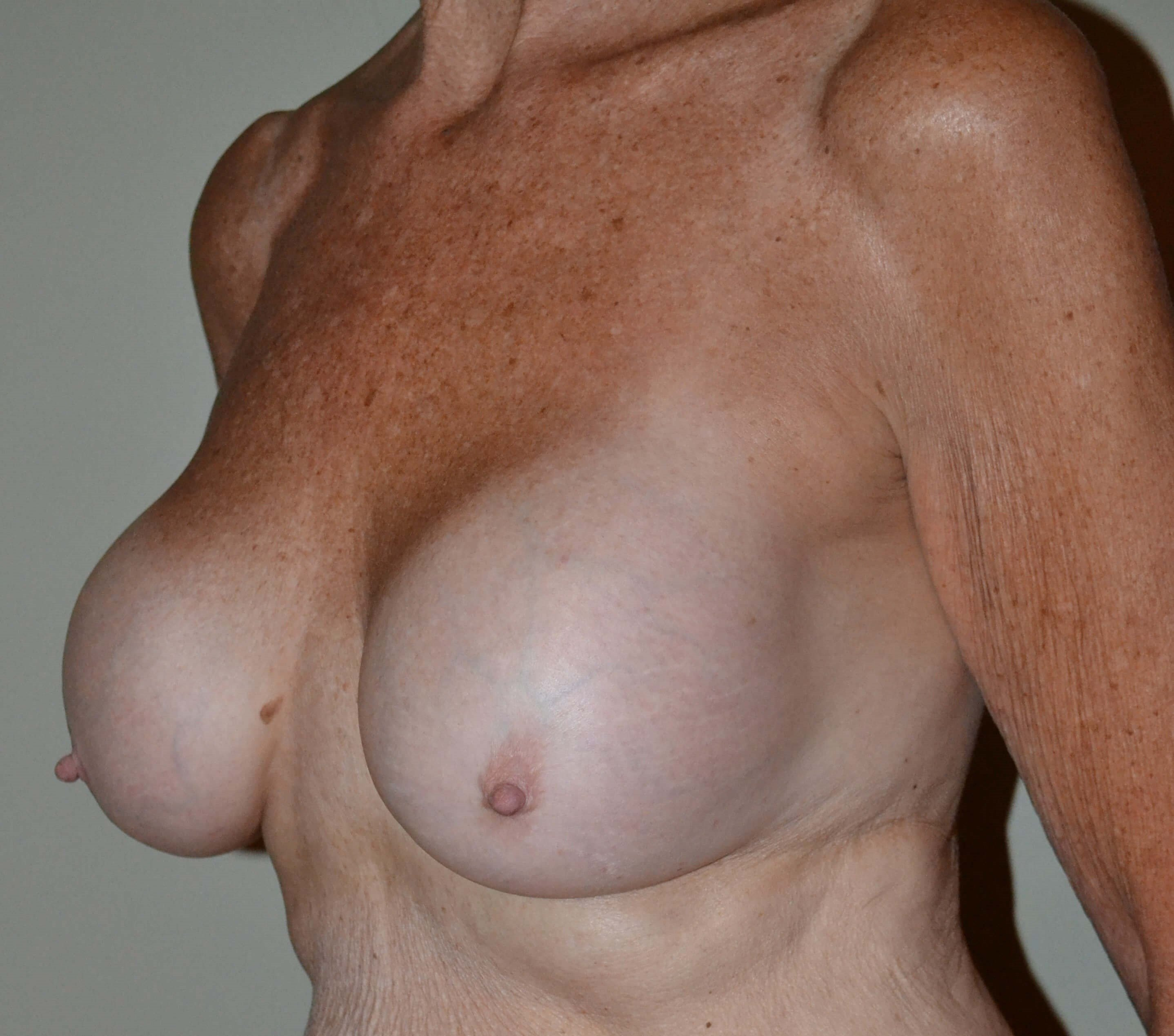 En bloc breast implant removal Before