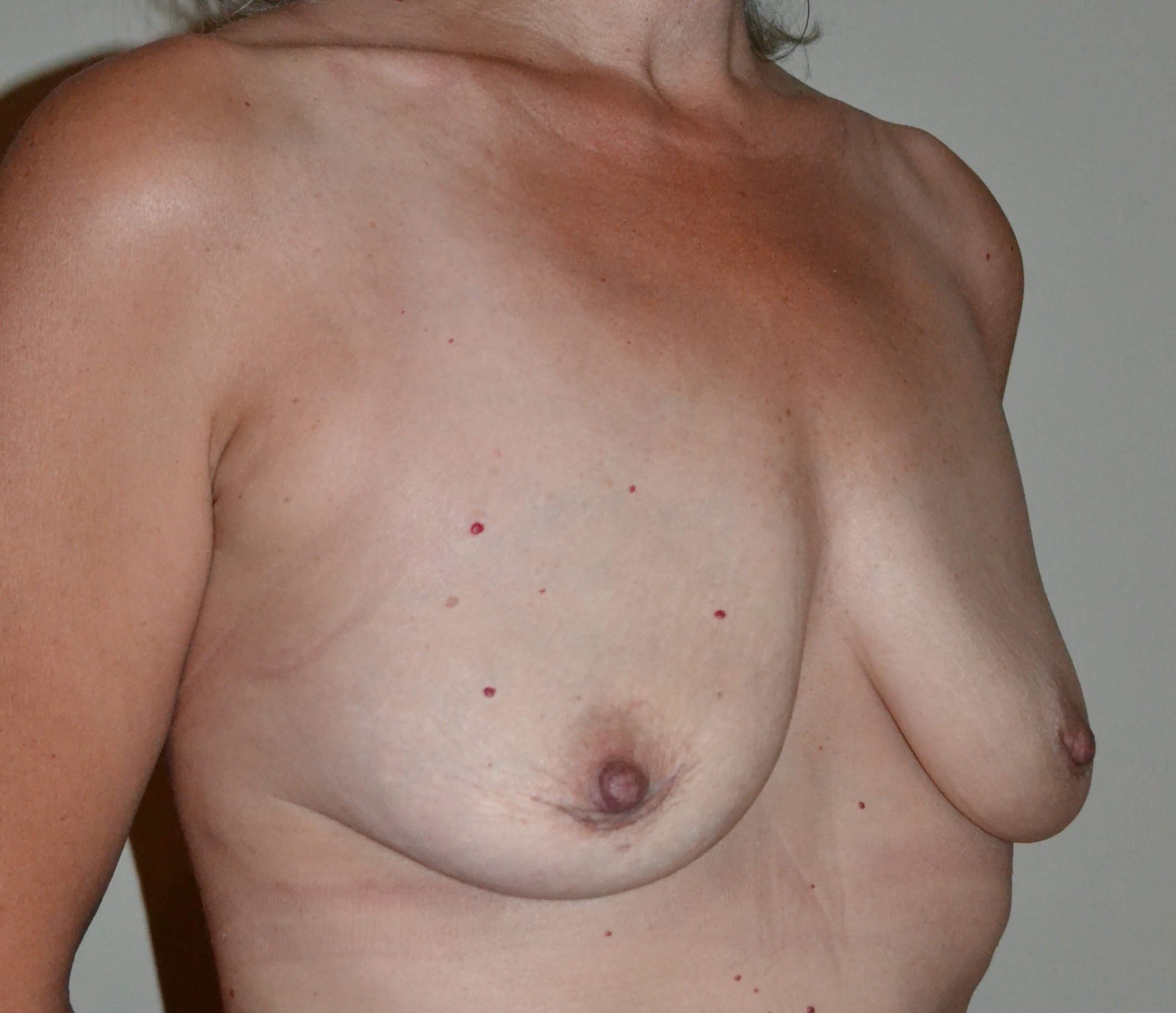 En bloc breast implant removal After