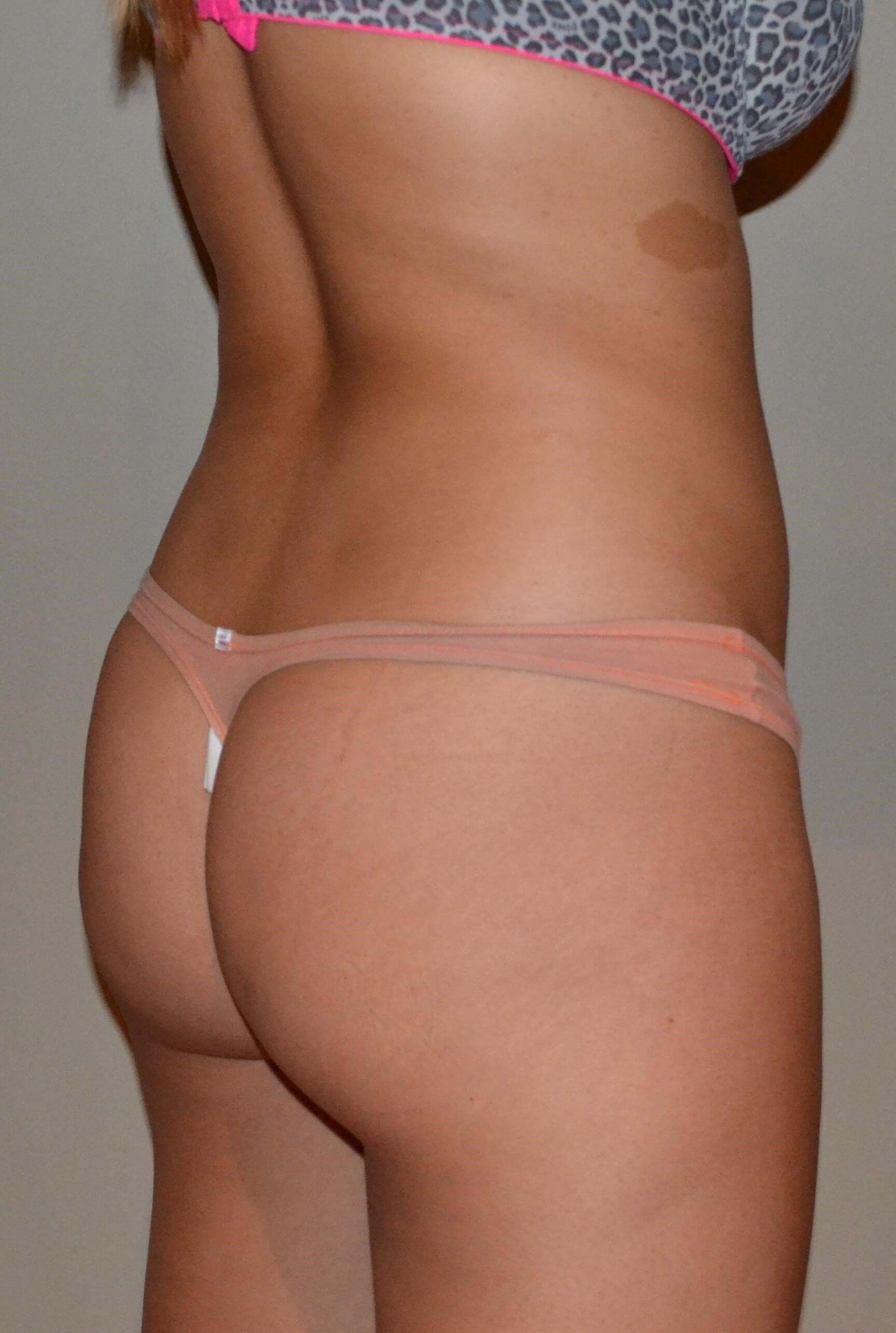 Brazilian Butt Lift Before, 3/4 back view