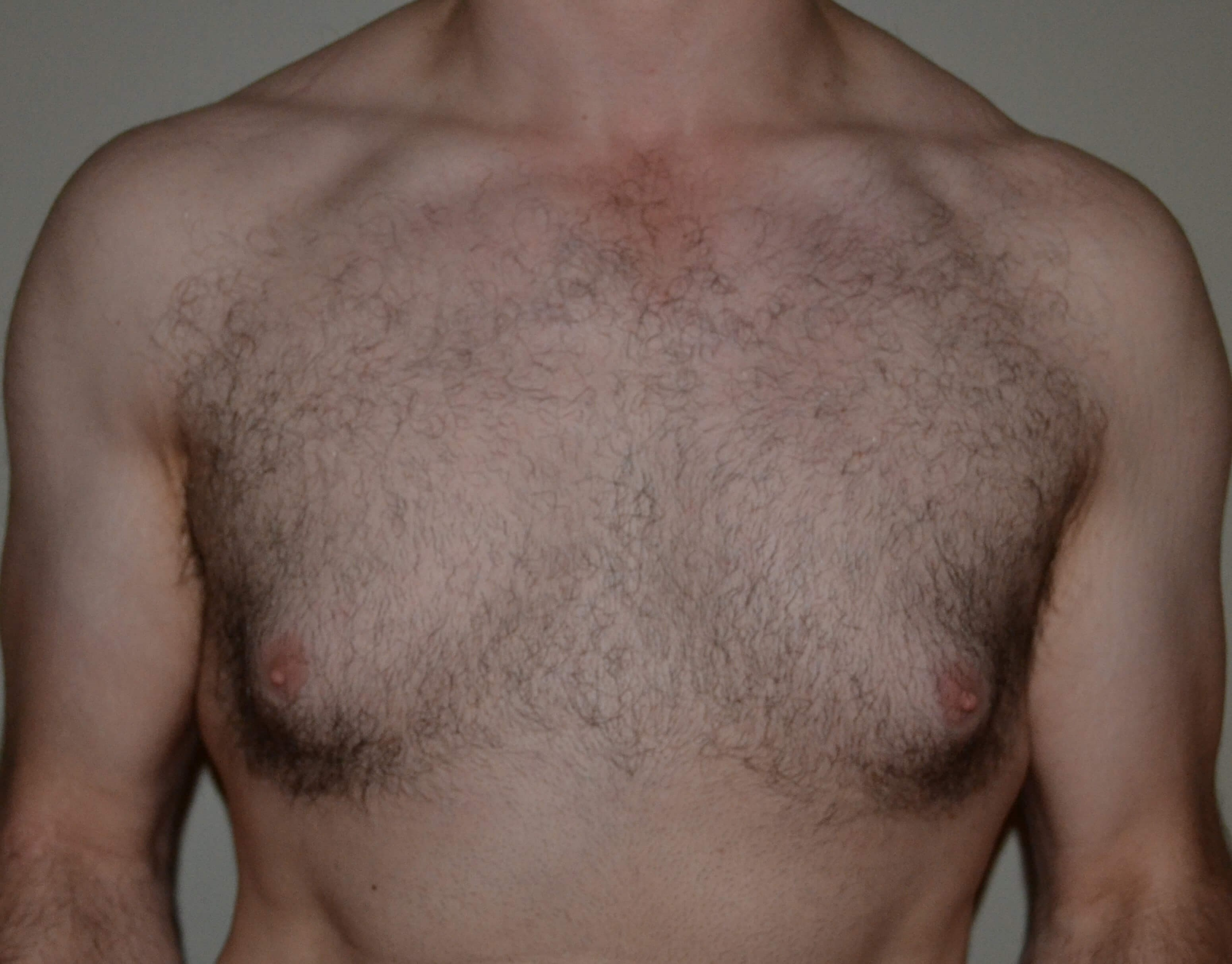 VASER Lipo of gynecomastia Before