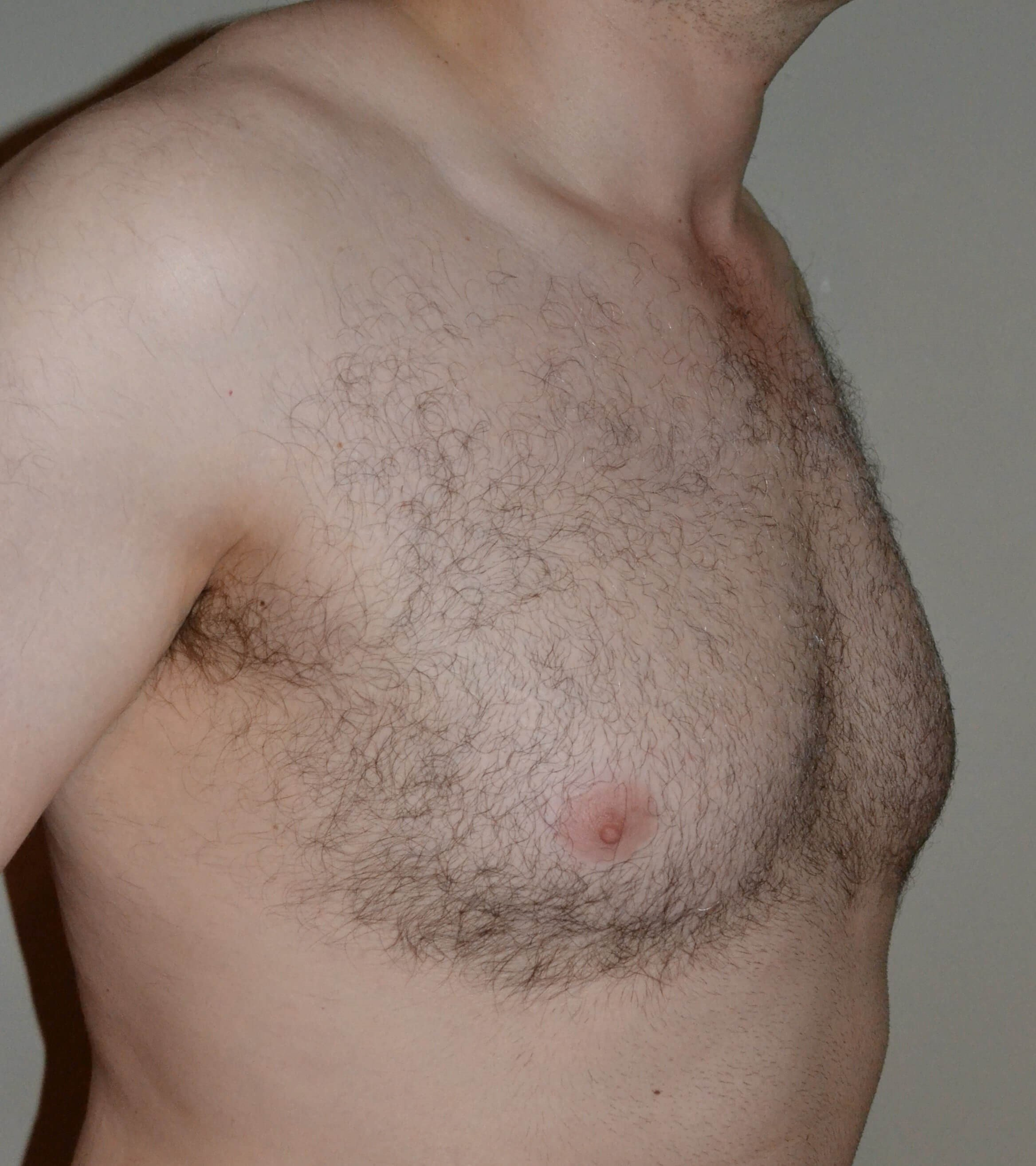 VASER Lipo of gynecomastia Before 3/4 view