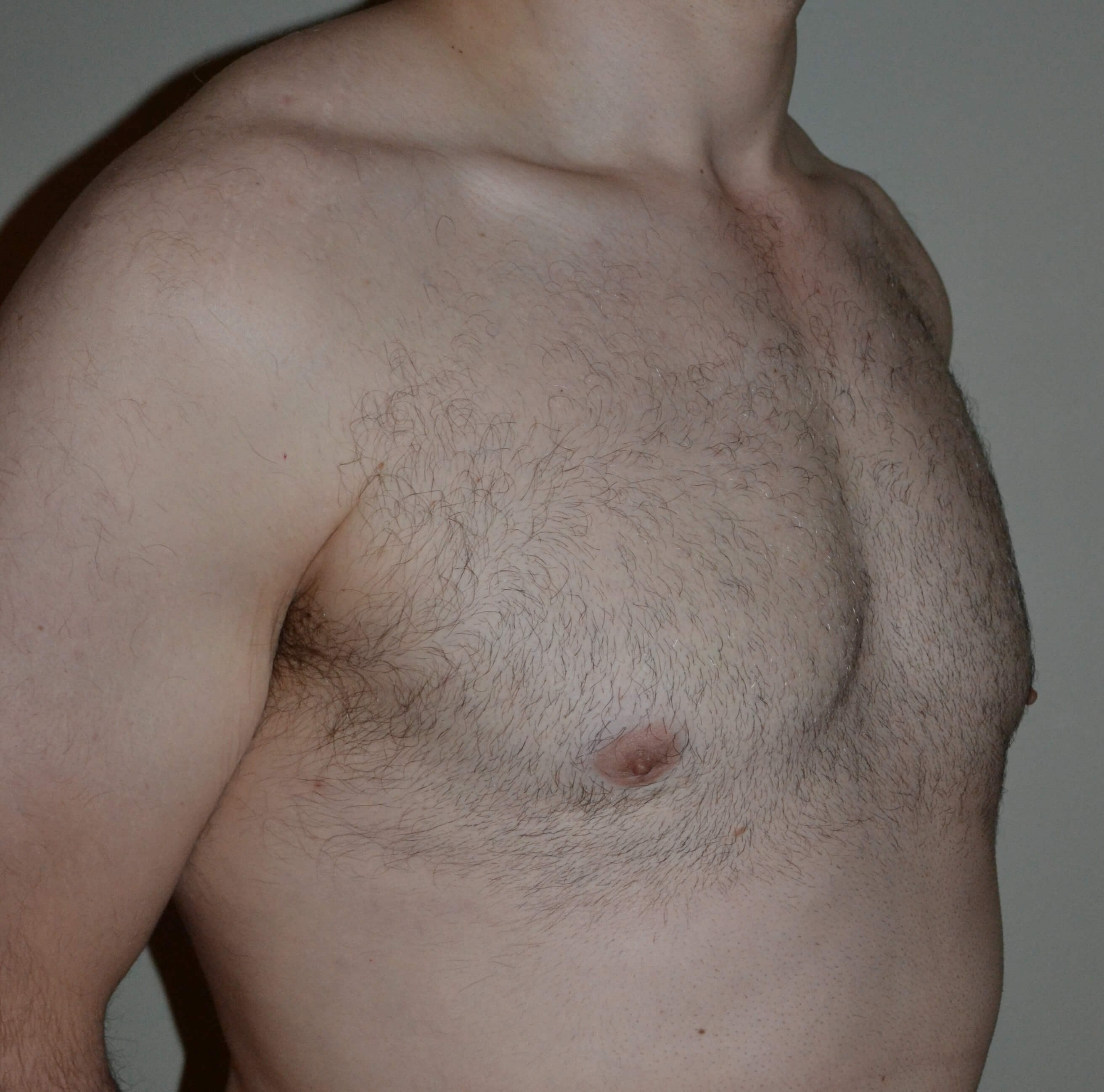 VASER Lipo of gynecomastia After 3/4 view