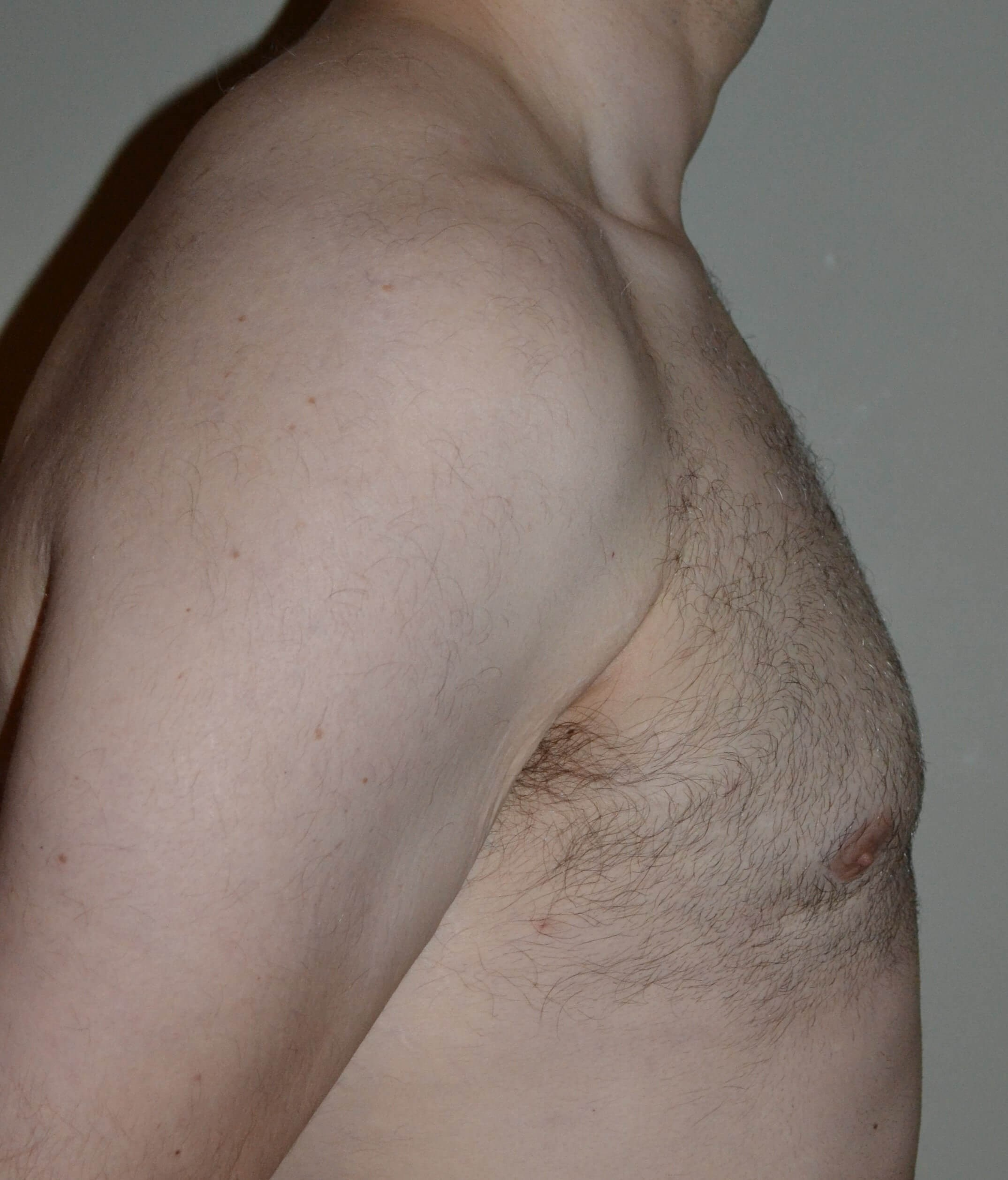 VASER Lipo of gynecomastia After