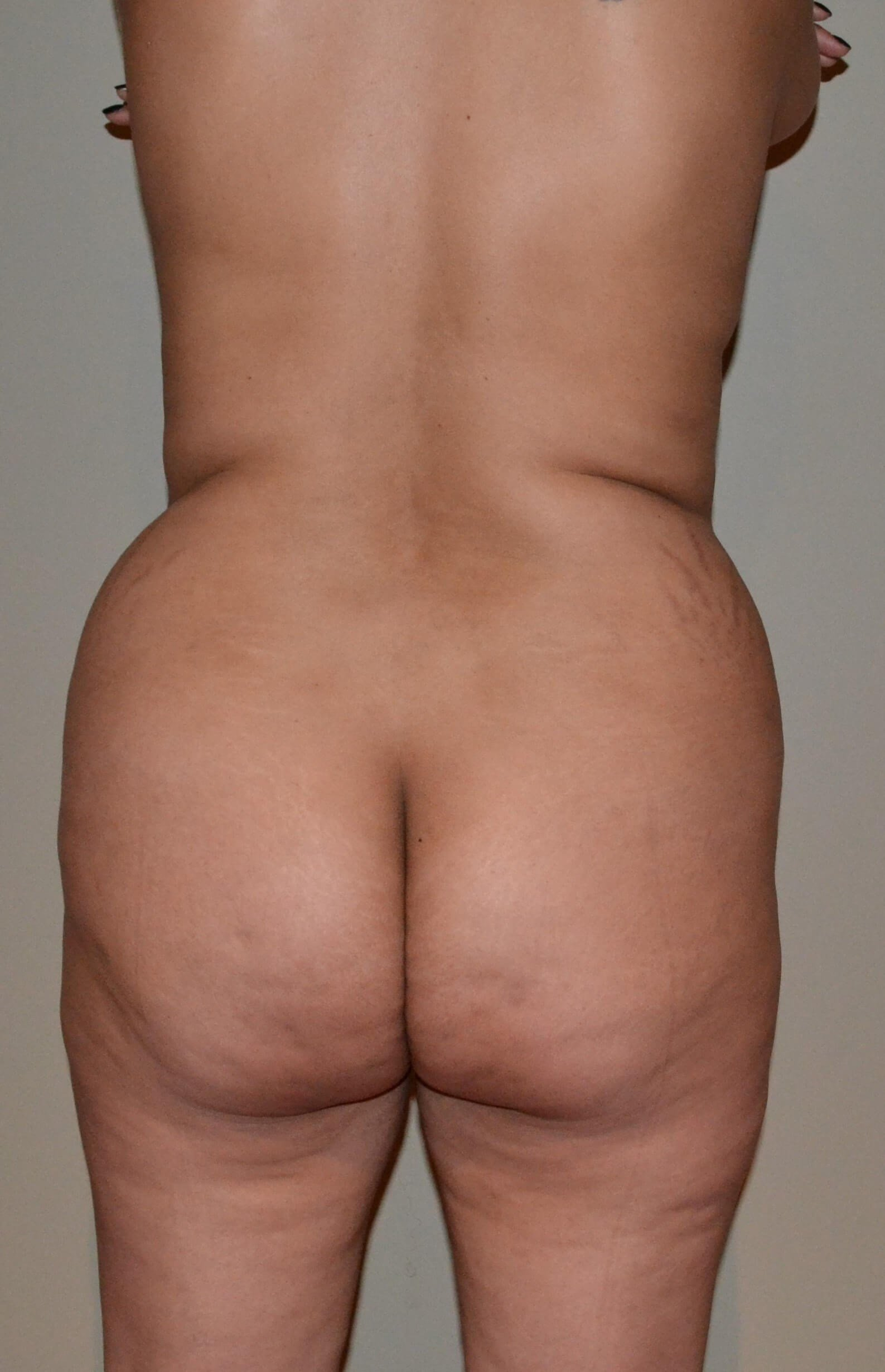 Brazilian Buttock Lift Before