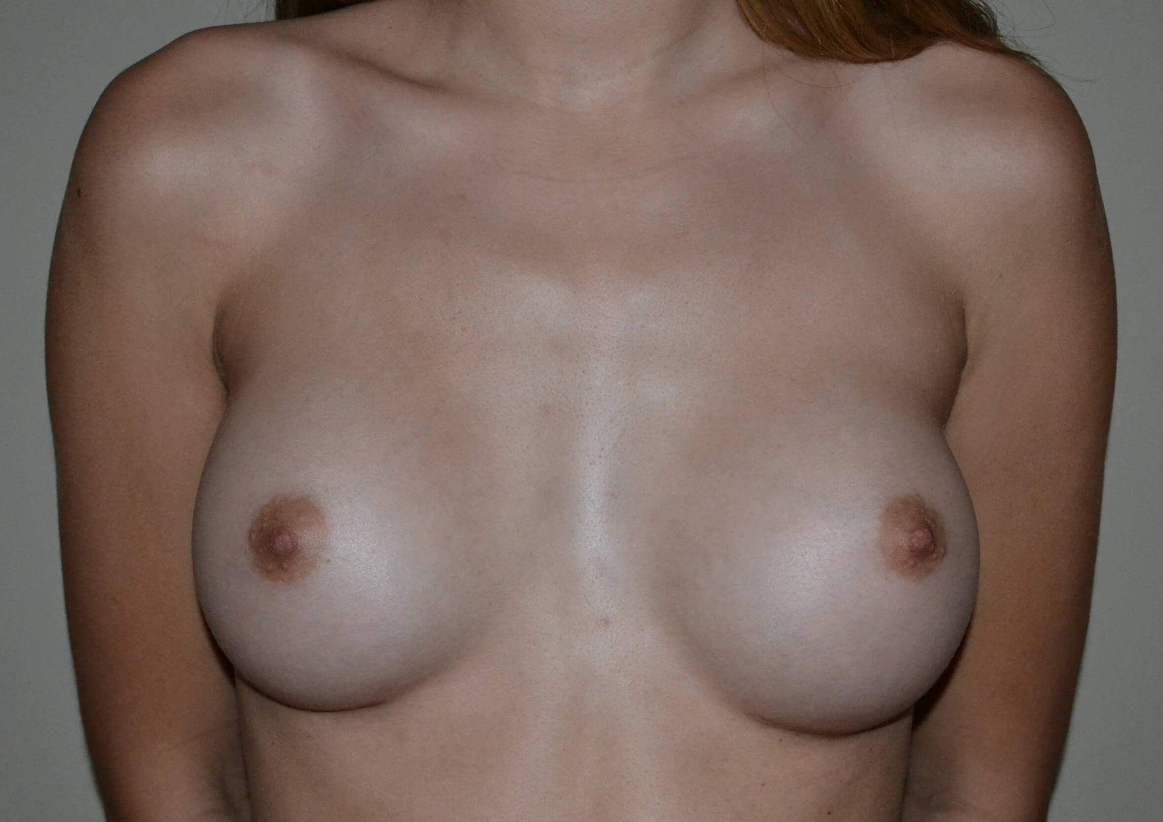 Breast Augmentation, Ideal Imp After