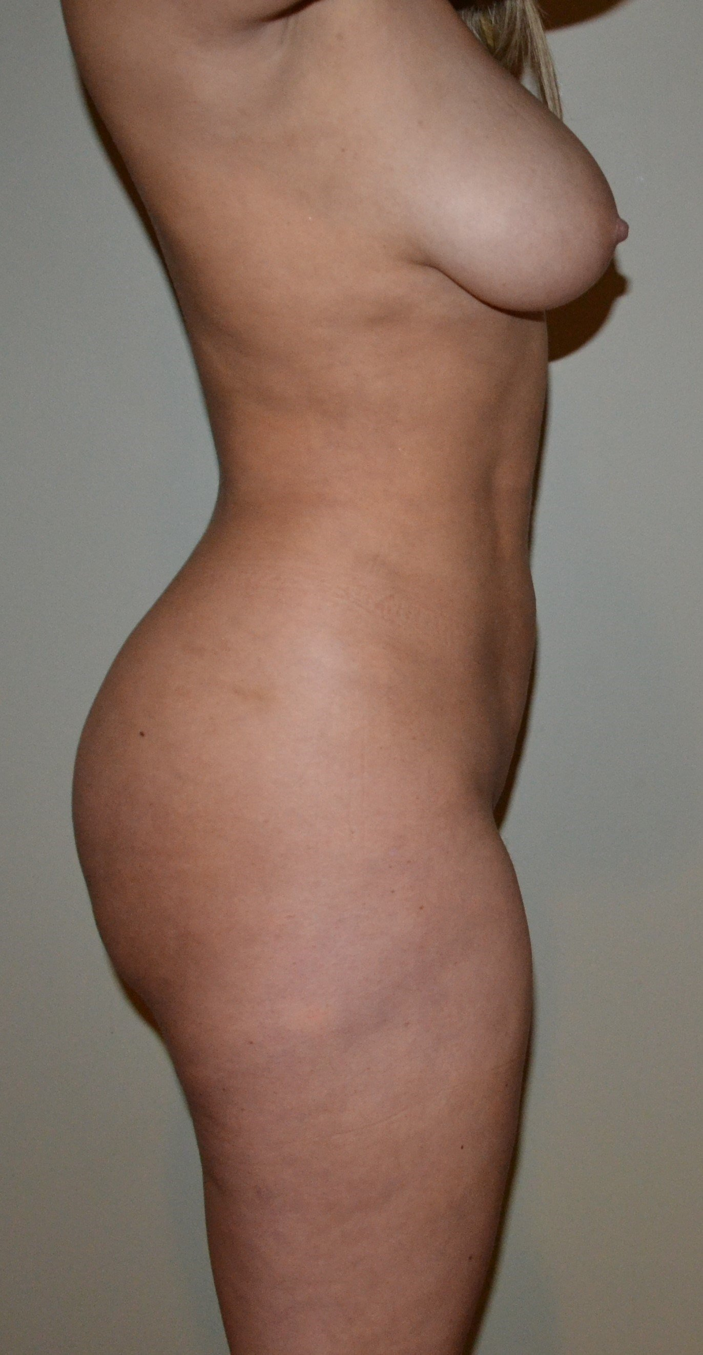 VASER Hi Def Lipo and BBL After, 5 months post surgery
