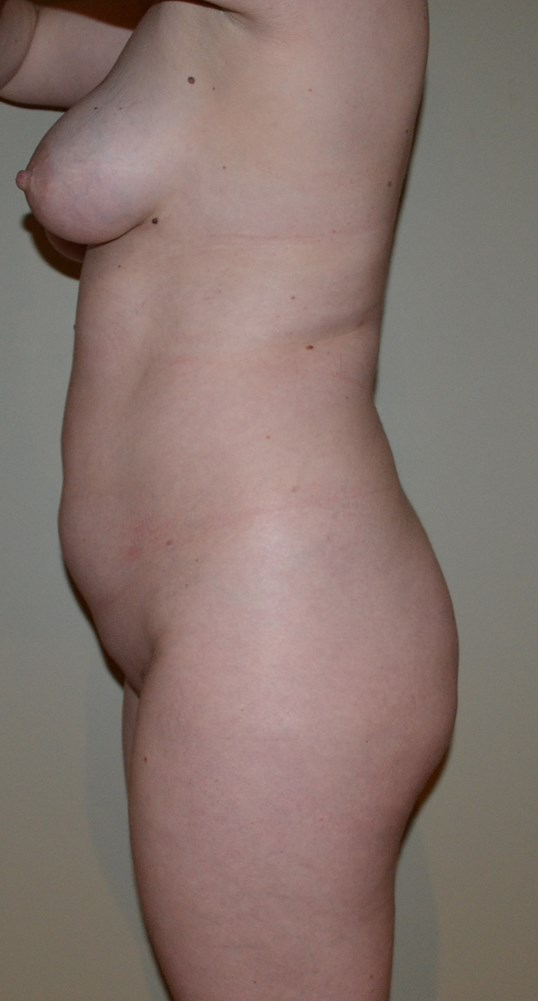 VASER Hi Def Lipo and BBL Before