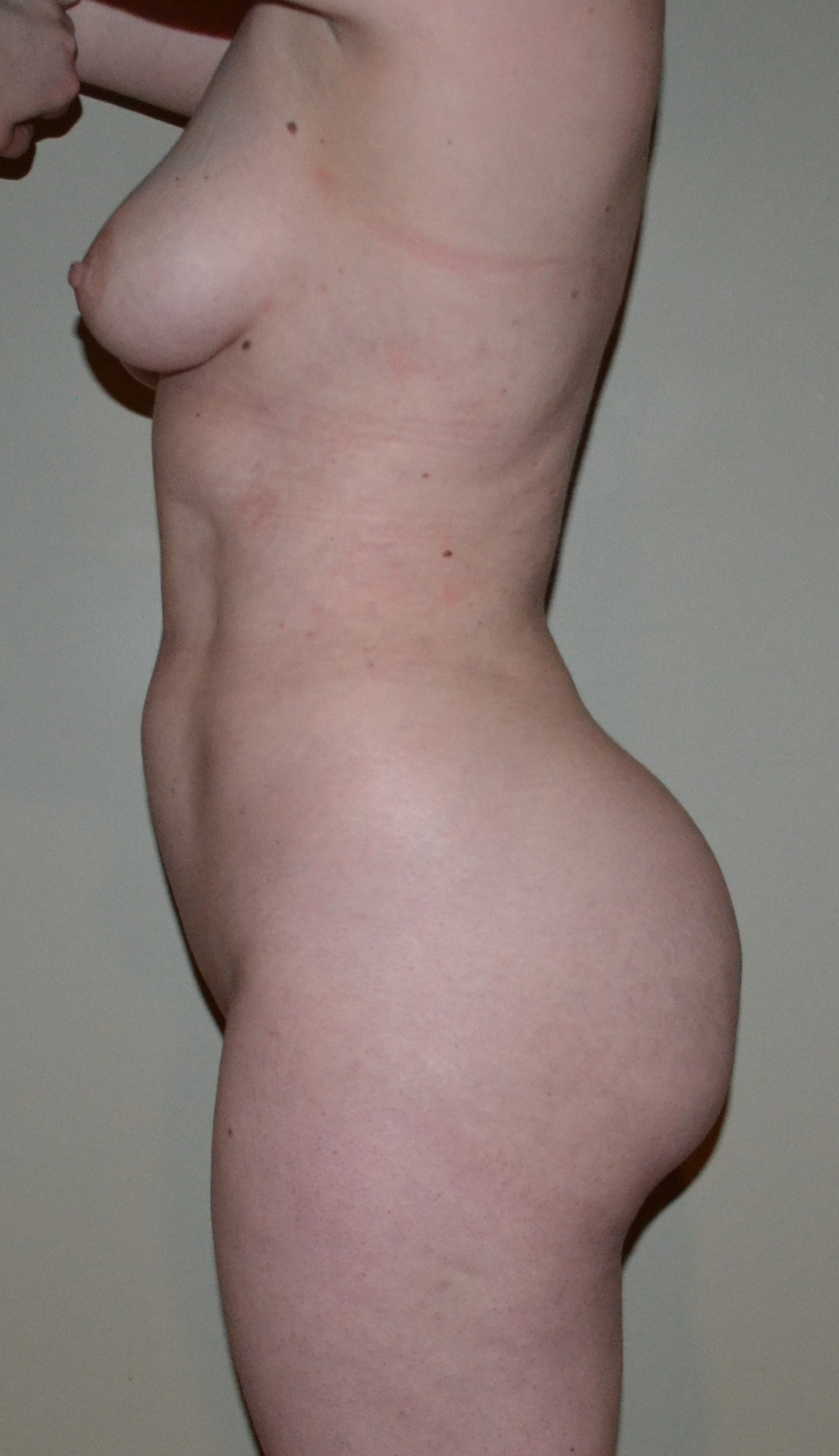 VASER Hi Def Lipo and BBL After, 8 months post surgery