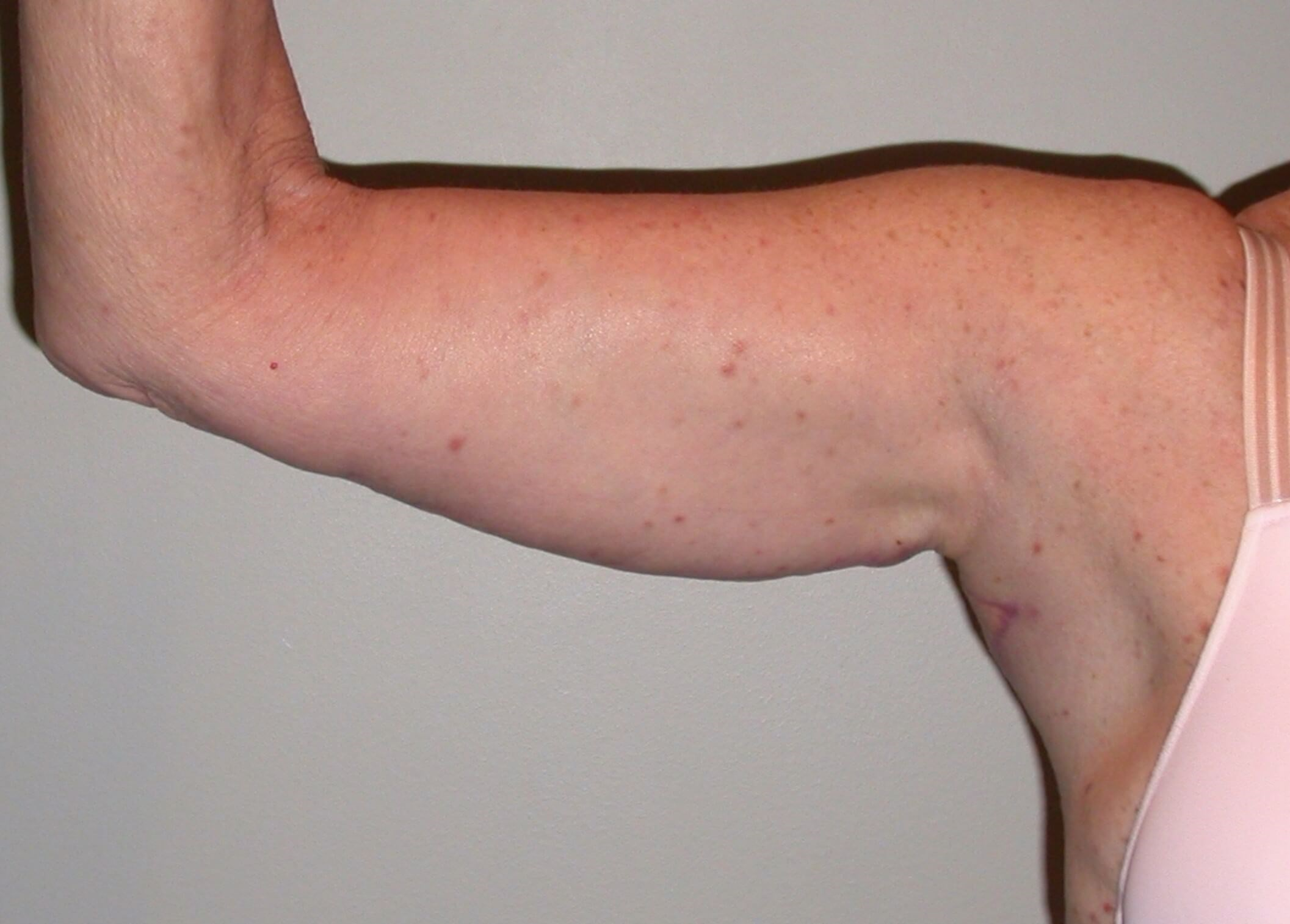 Bilateral extended arm lifts After