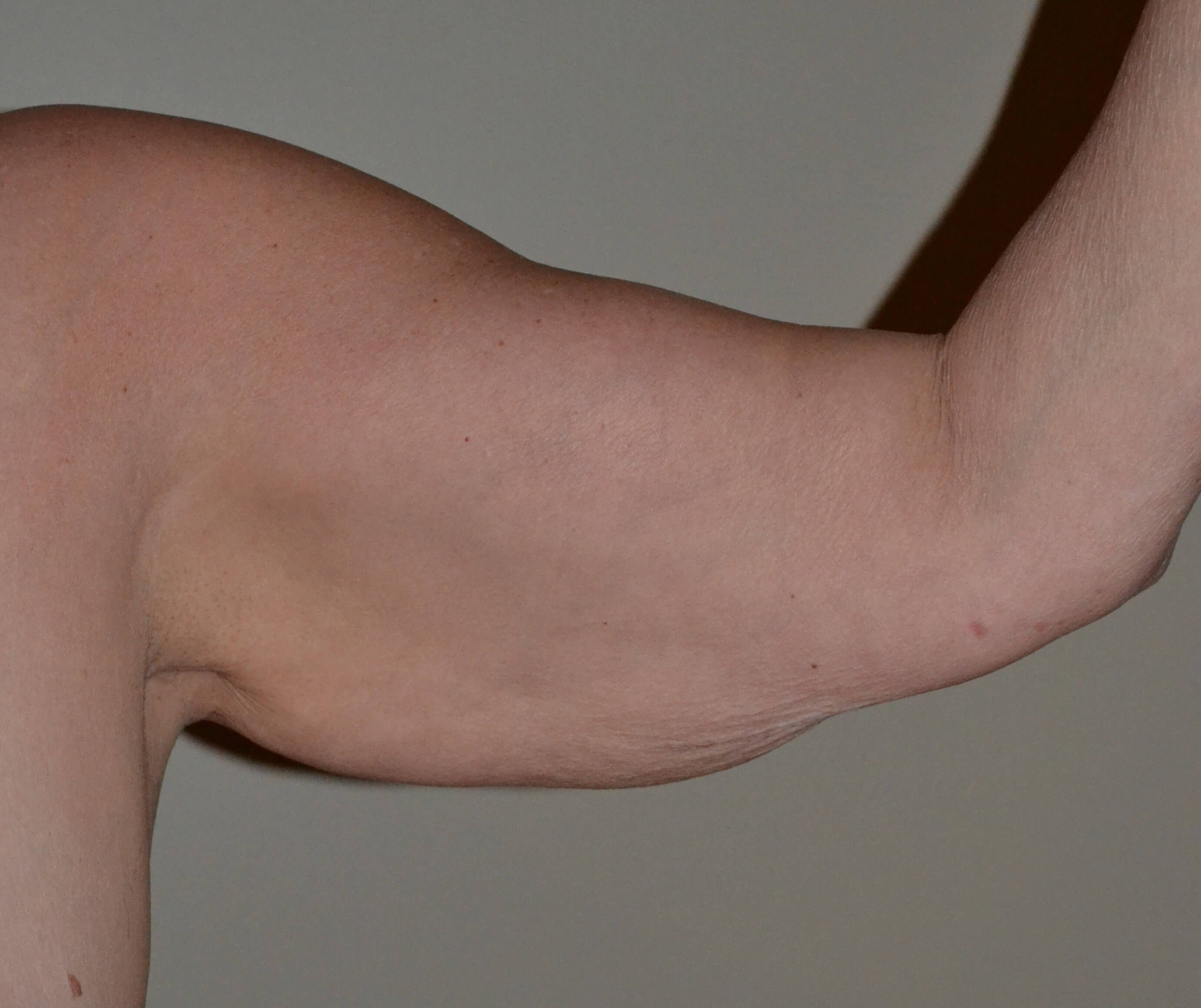 Arm liposuction and lift Before