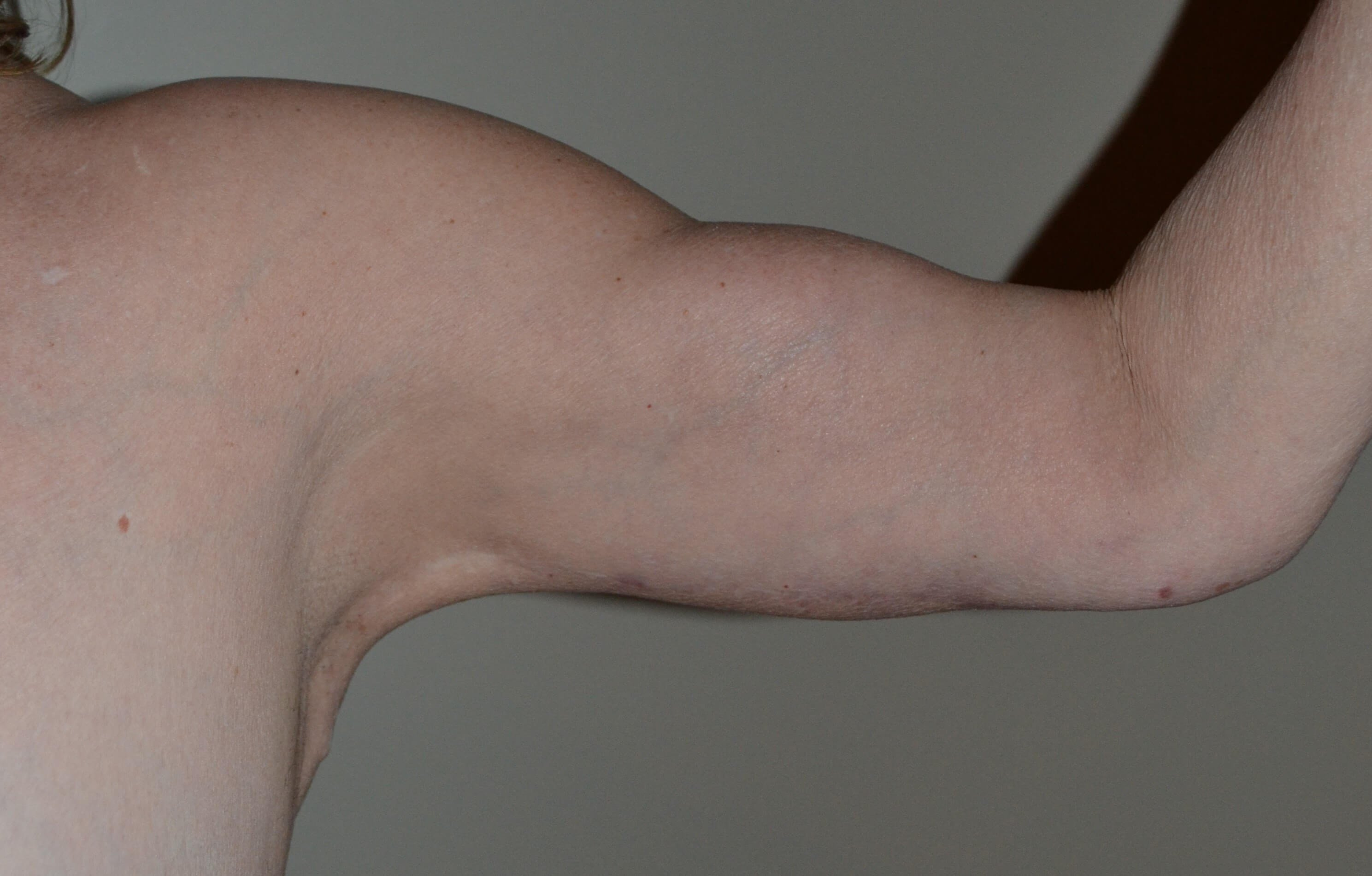 Arm liposuction and lift After, 1 year post surgery.