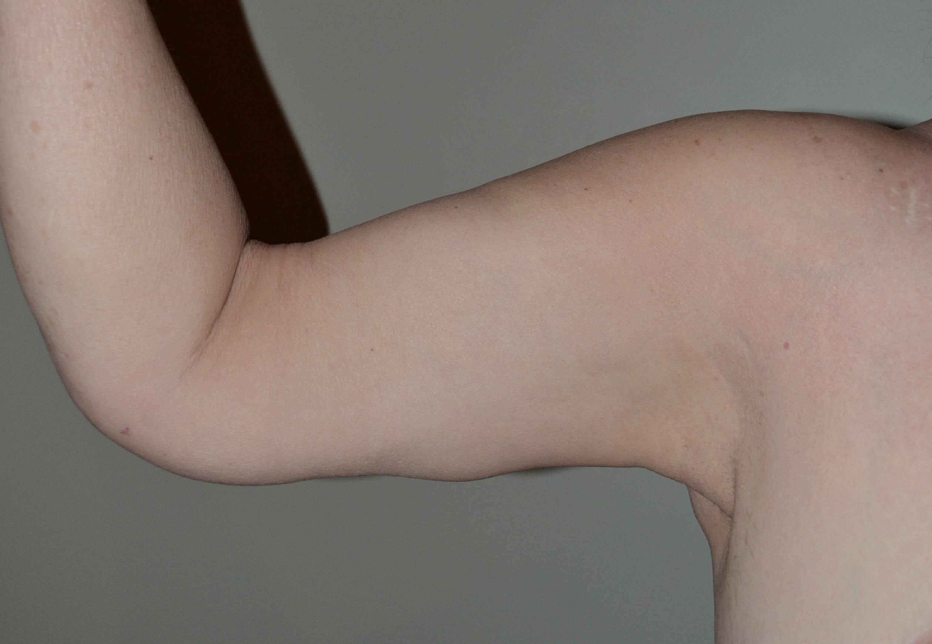 Arm liposuction and lift After
