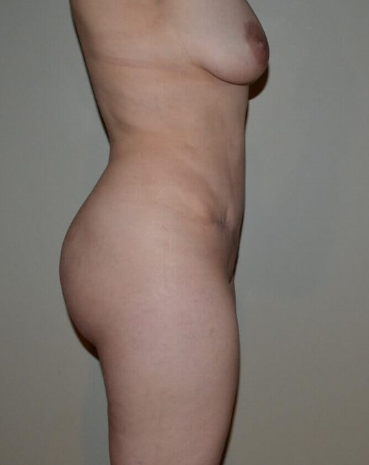 4D Abdominoplasty After
