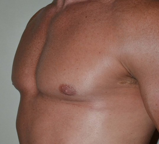 VASER Hi Def Lipo gynecomastia After