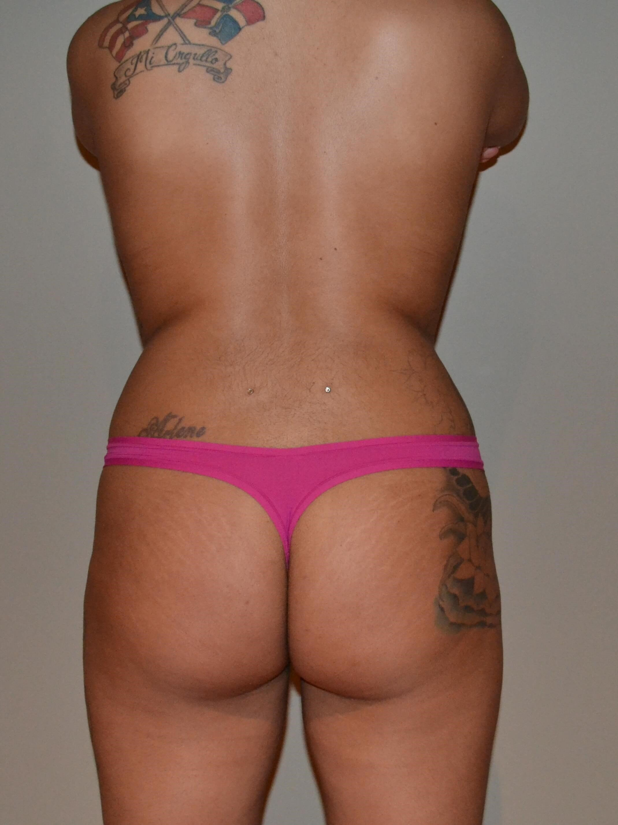 Brazilian Butt Lift Before, back view