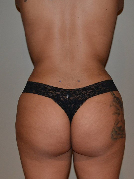 Brazilian Butt Lift After, back view