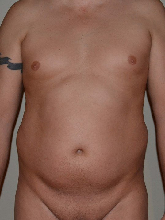 VASER Hi Def Lipo Before, frontal view