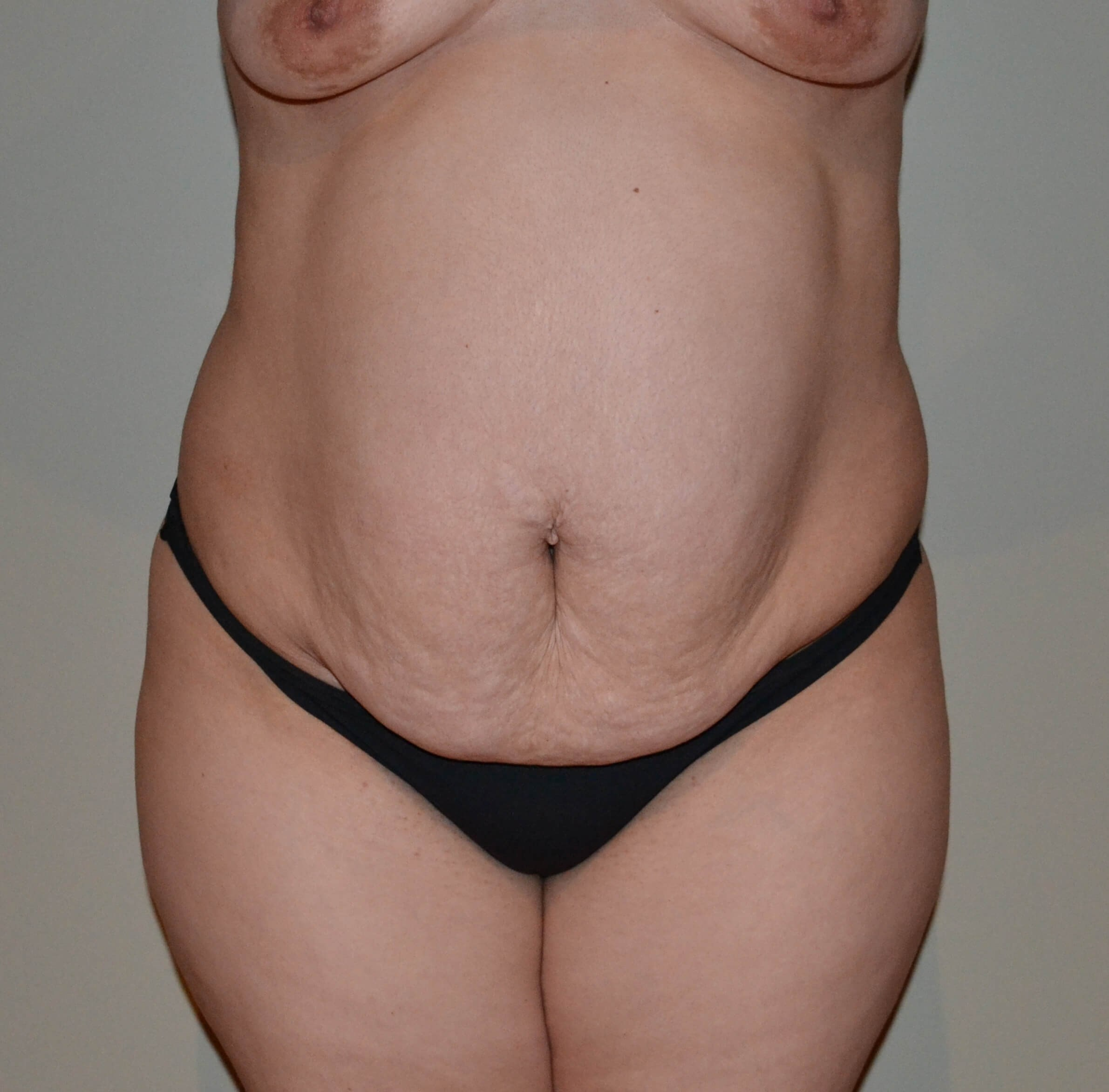 Tummy tuck Before, frontal view