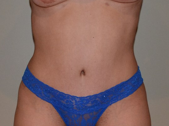Tummy tuck After, frontal view
