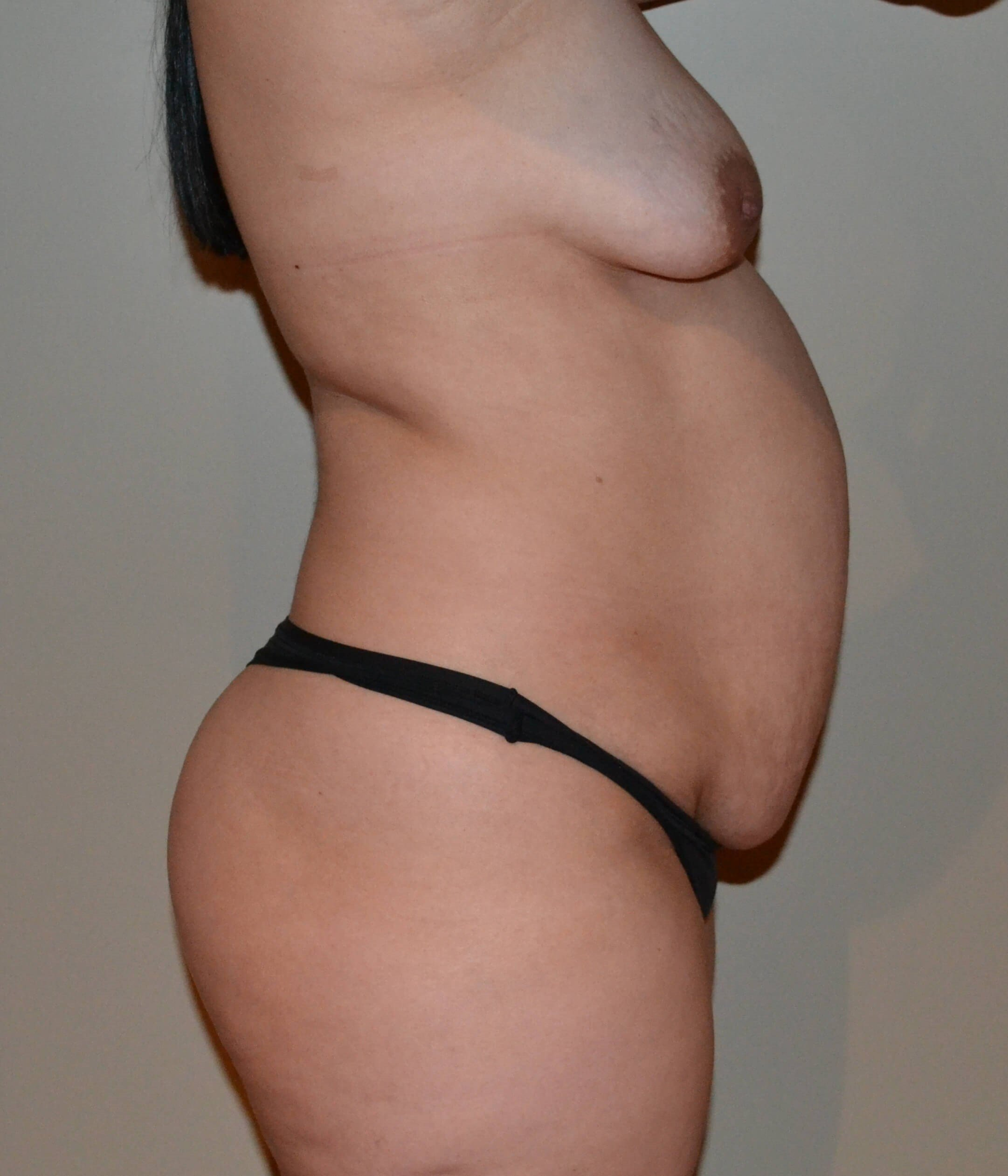 Tummy tuck Before, side view