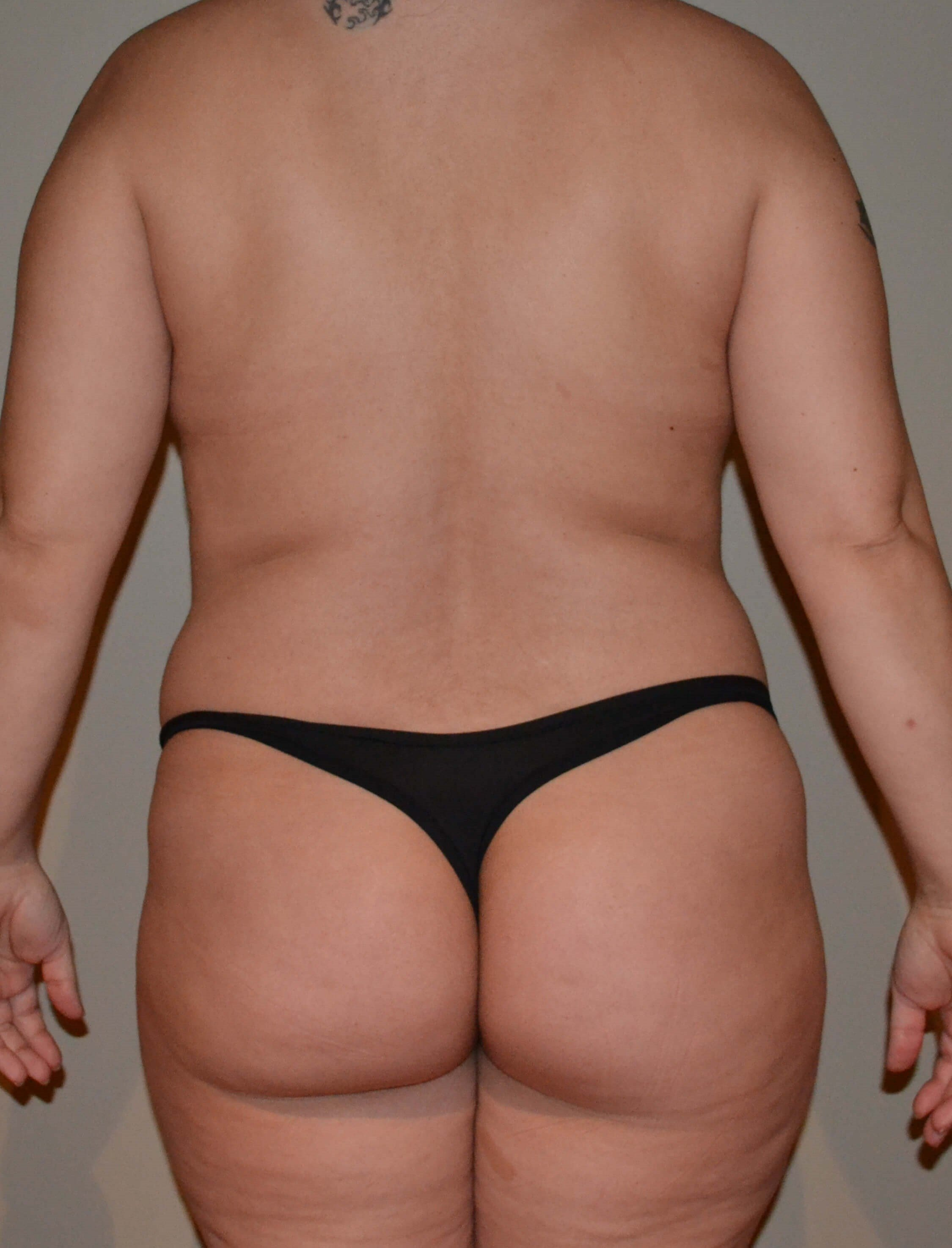 Tummy tuck Before, back view